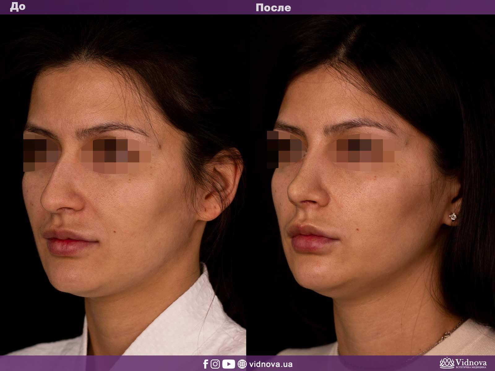 Ринопластика: Фото ДО и ПОСЛЕ - Пример №2-2 - Клиника Vidnova