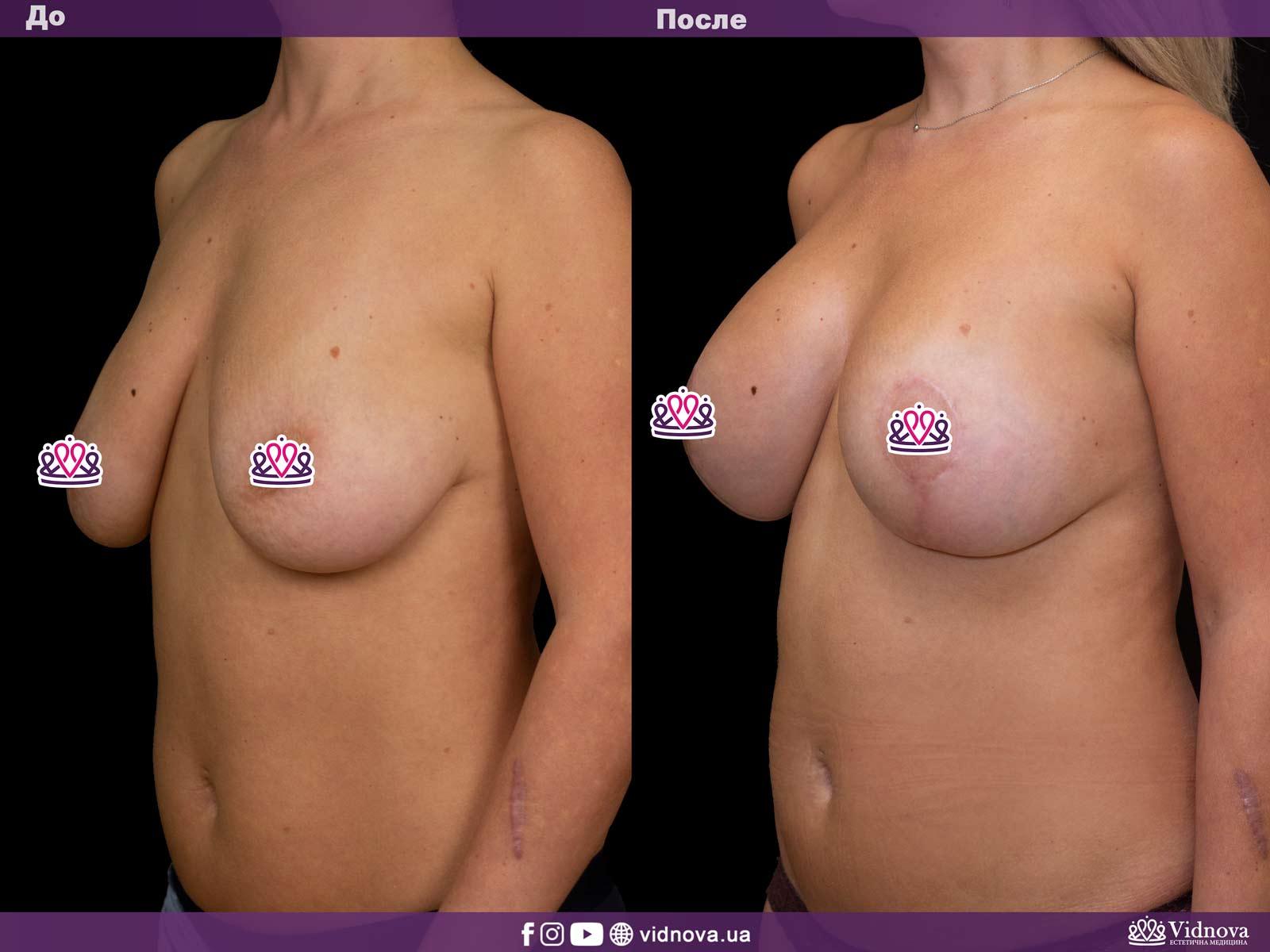 Подтяжка груди: Фото ДО и ПОСЛЕ - Пример №6-2 - Клиника Vidnova