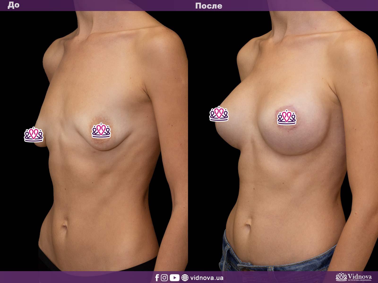 Подтяжка груди: Фото ДО и ПОСЛЕ - Пример №11-2 - Клиника Vidnova