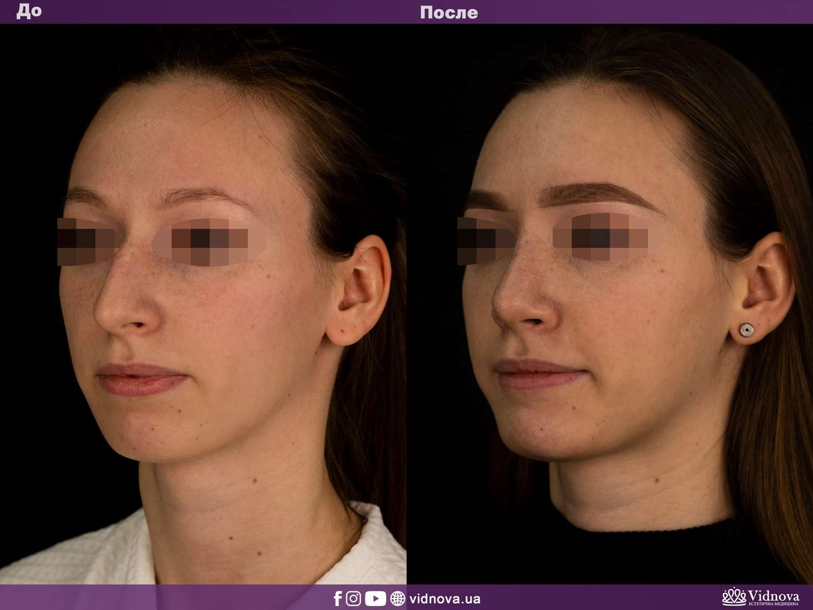 Ринопластика: Фото ДО и ПОСЛЕ - Пример №1-2 - Клиника Vidnova