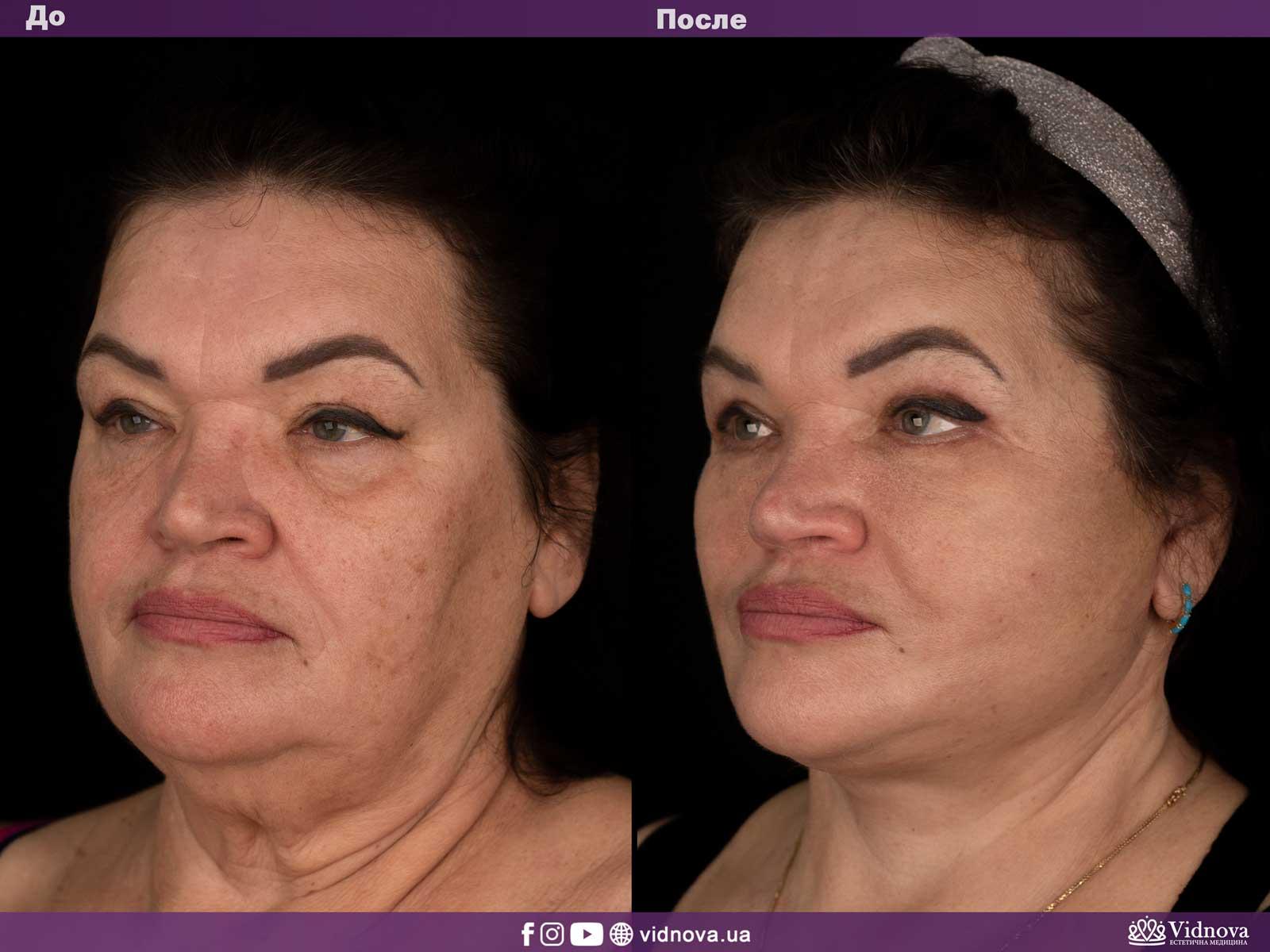 Подтяжка лица и шеи: Фото ДО и ПОСЛЕ - Пример №1-2 - Клиника Vidnova