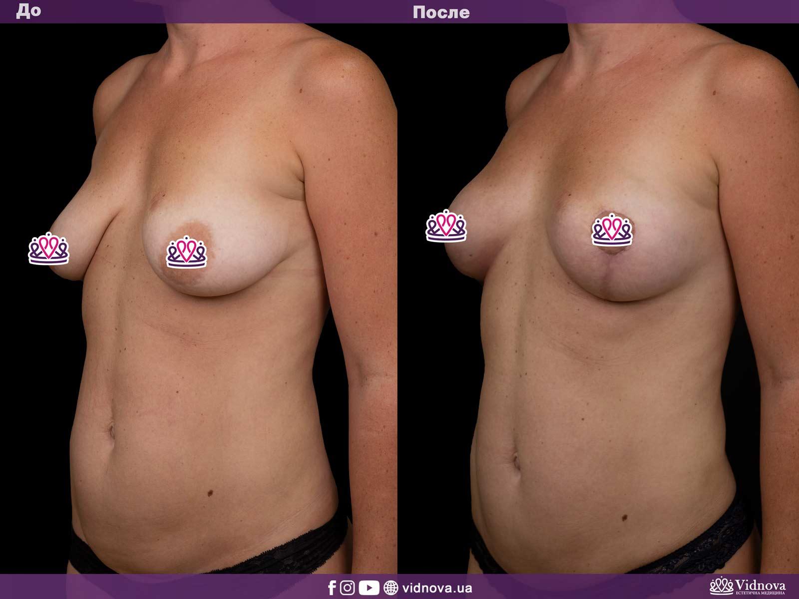 Подтяжка груди: Фото ДО и ПОСЛЕ - Пример №12-2 - Клиника Vidnova