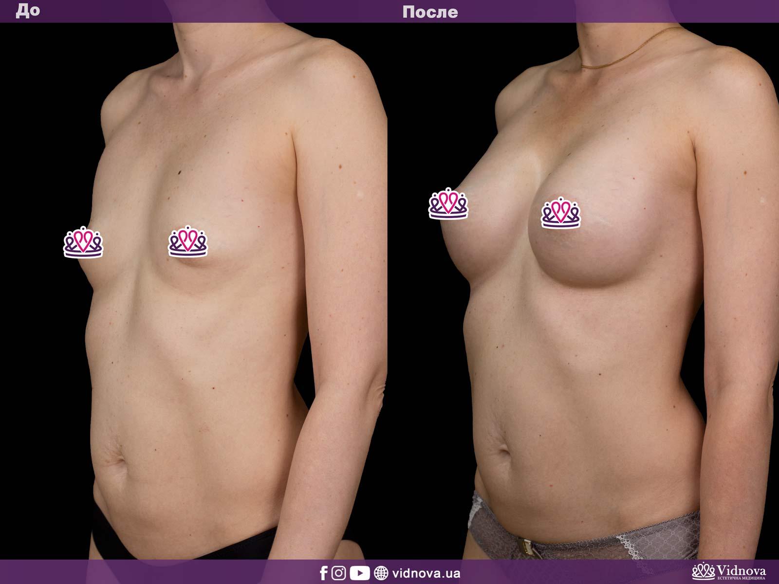 Увеличение груди: Фото ДО и ПОСЛЕ - Пример №24-2 - Клиника Vidnova