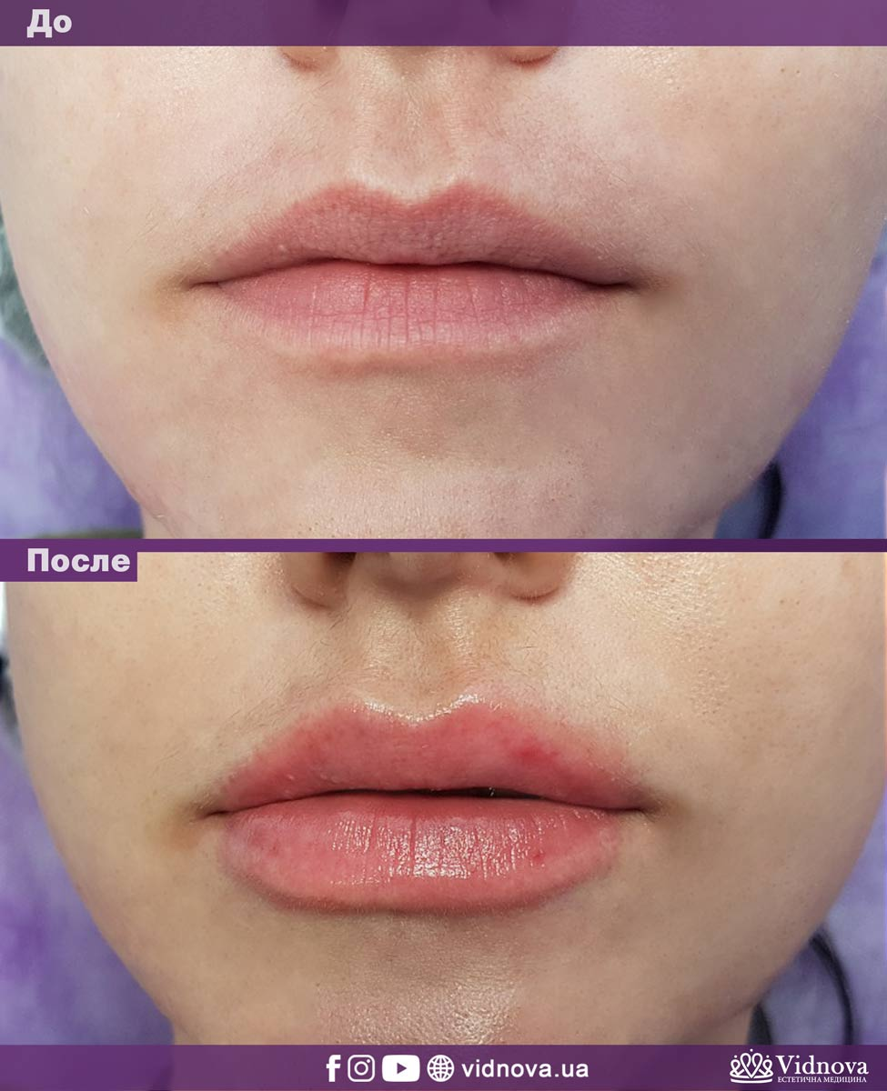 Увеличение губ: Фото До и После - Пример №11-2 - Клиника Vidnova