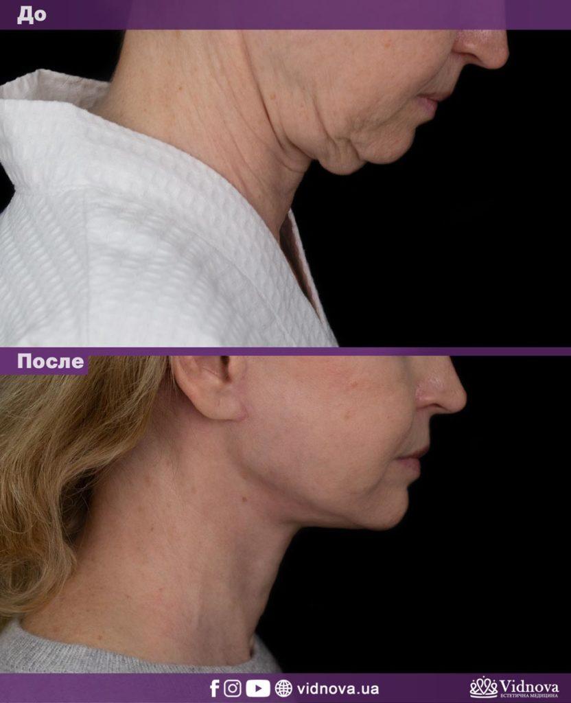 Подтяжка лица и шеи 2vs 5 832x1024 - клиника VIdnova