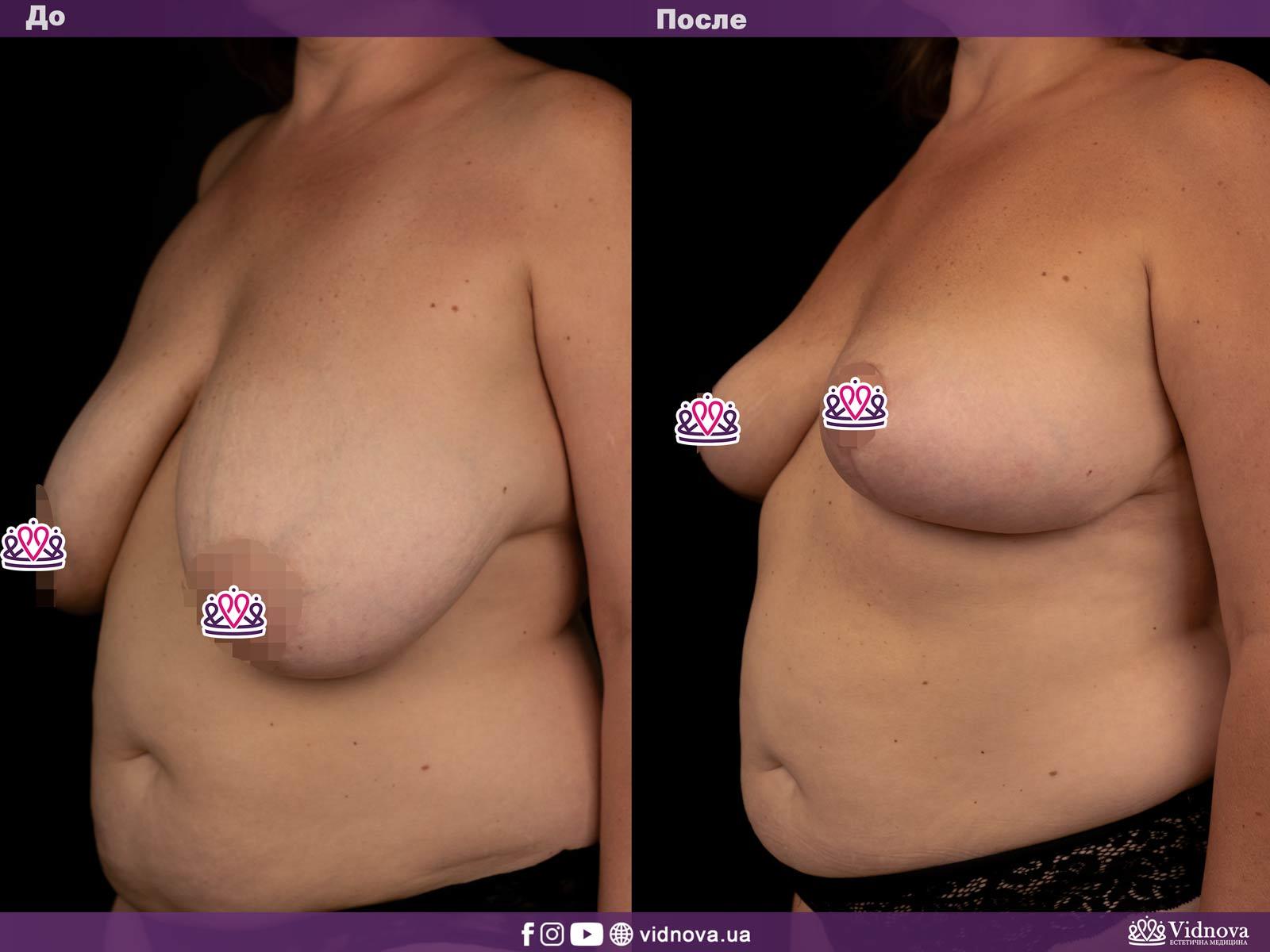 Уменьшение груди: Фото ДО и ПОСЛЕ - Пример №1-2 - Клиника Vidnova