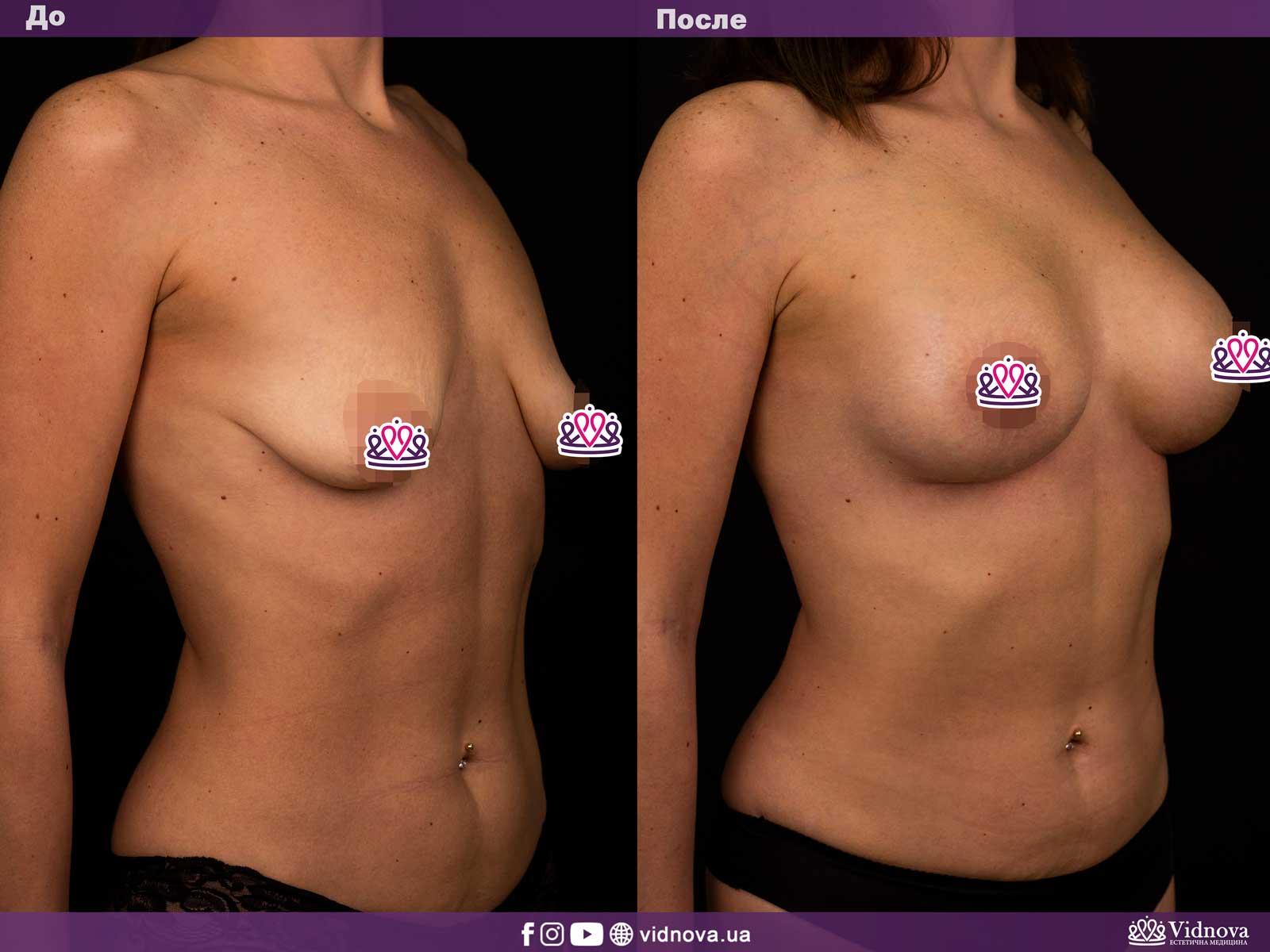 Подтяжка груди: Фото ДО и ПОСЛЕ - Пример №3-2 - Клиника Vidnova