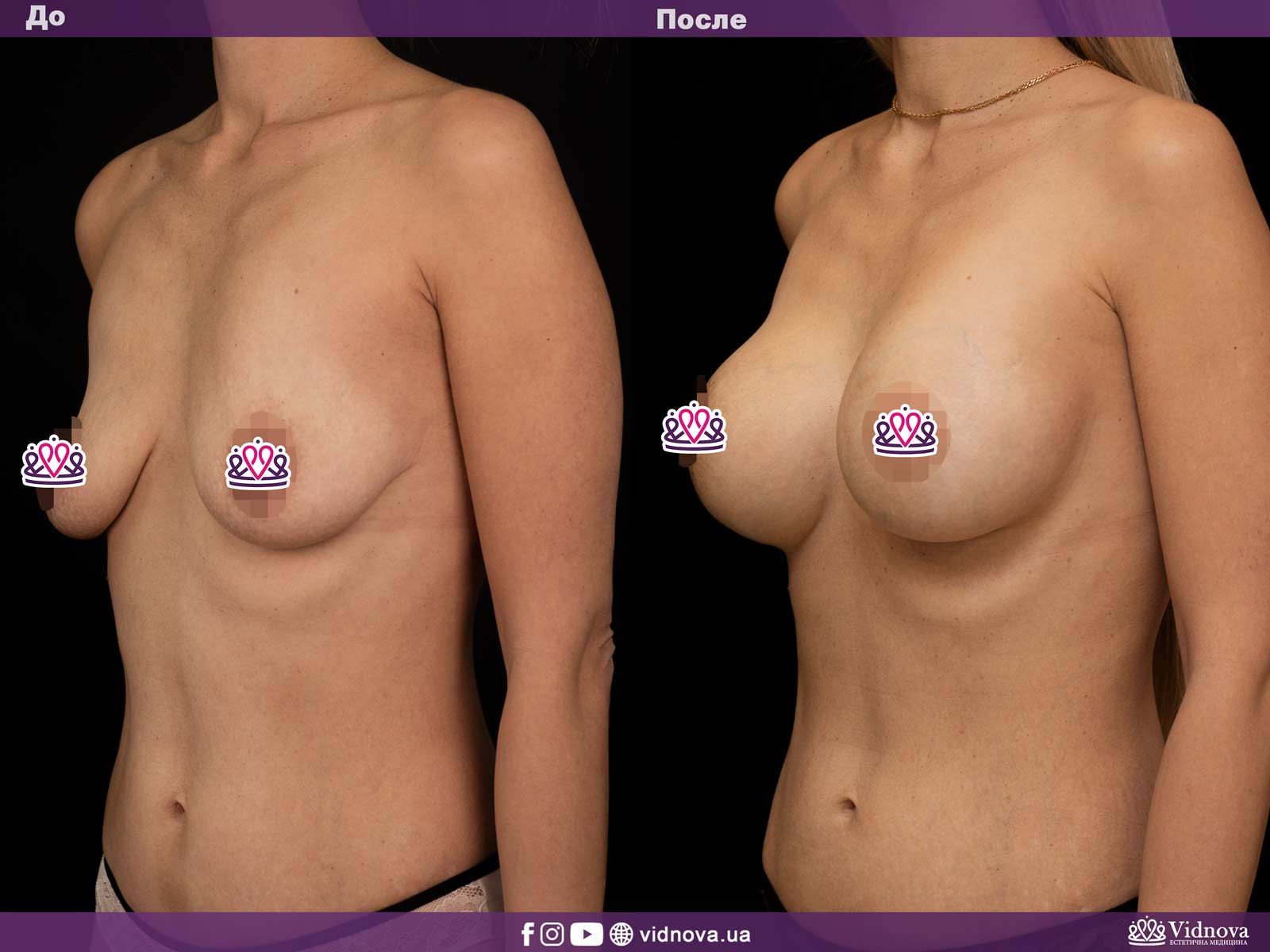 Подтяжка груди: Фото ДО и ПОСЛЕ - Пример №2-2 - Клиника Vidnova