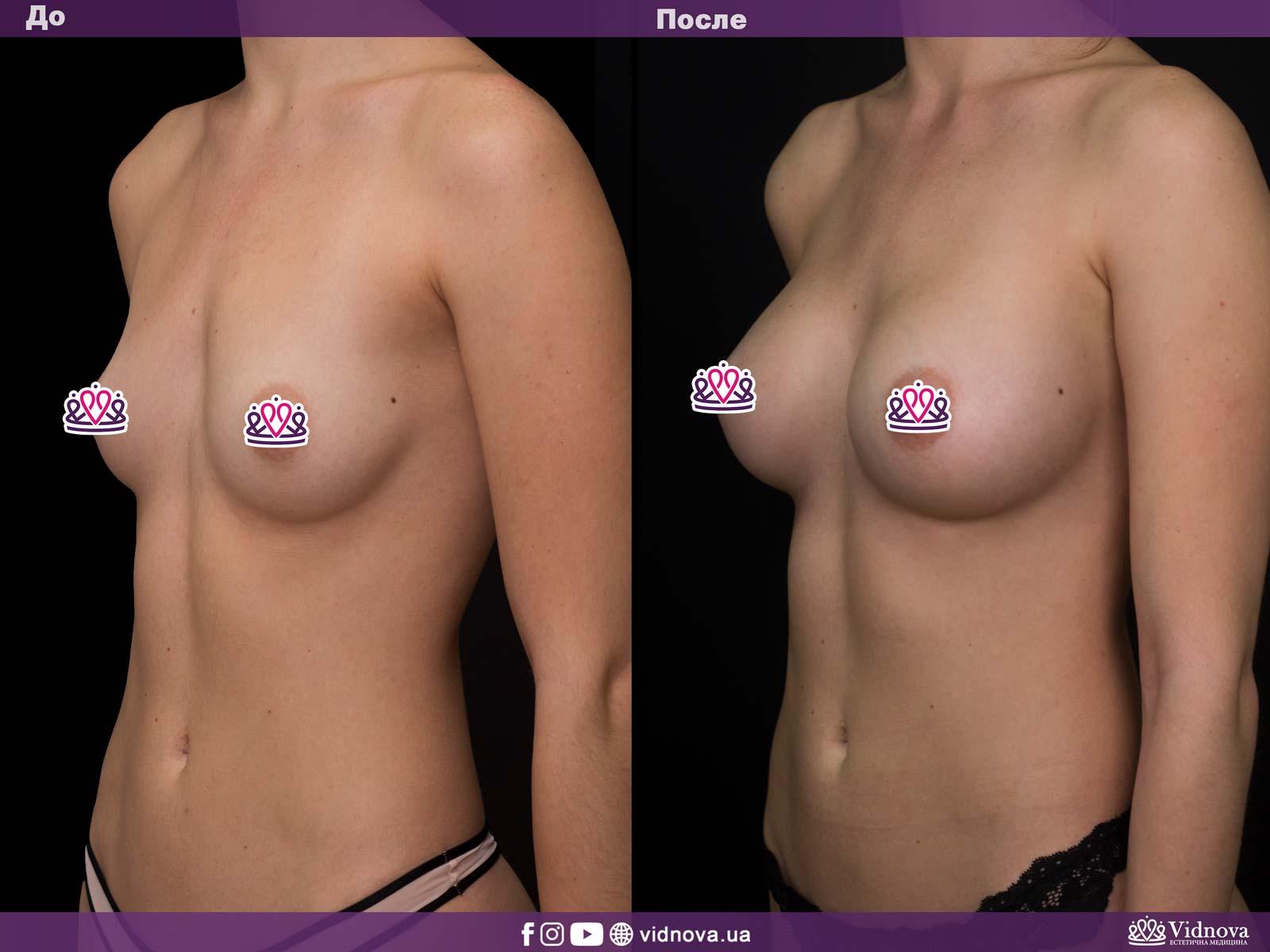 Увеличение груди: Фото ДО и ПОСЛЕ - Пример №3-2 - Клиника Vidnova