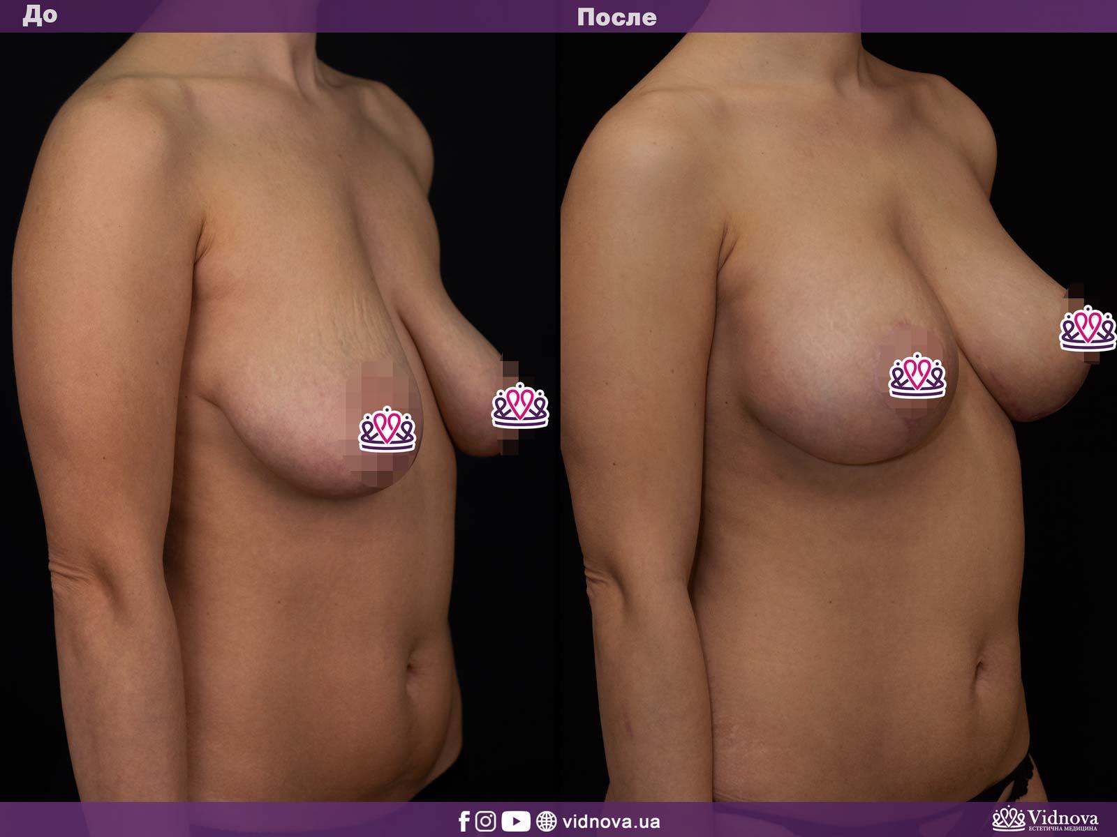 Подтяжка груди: Фото ДО и ПОСЛЕ - Пример №1-2 - Клиника Vidnova