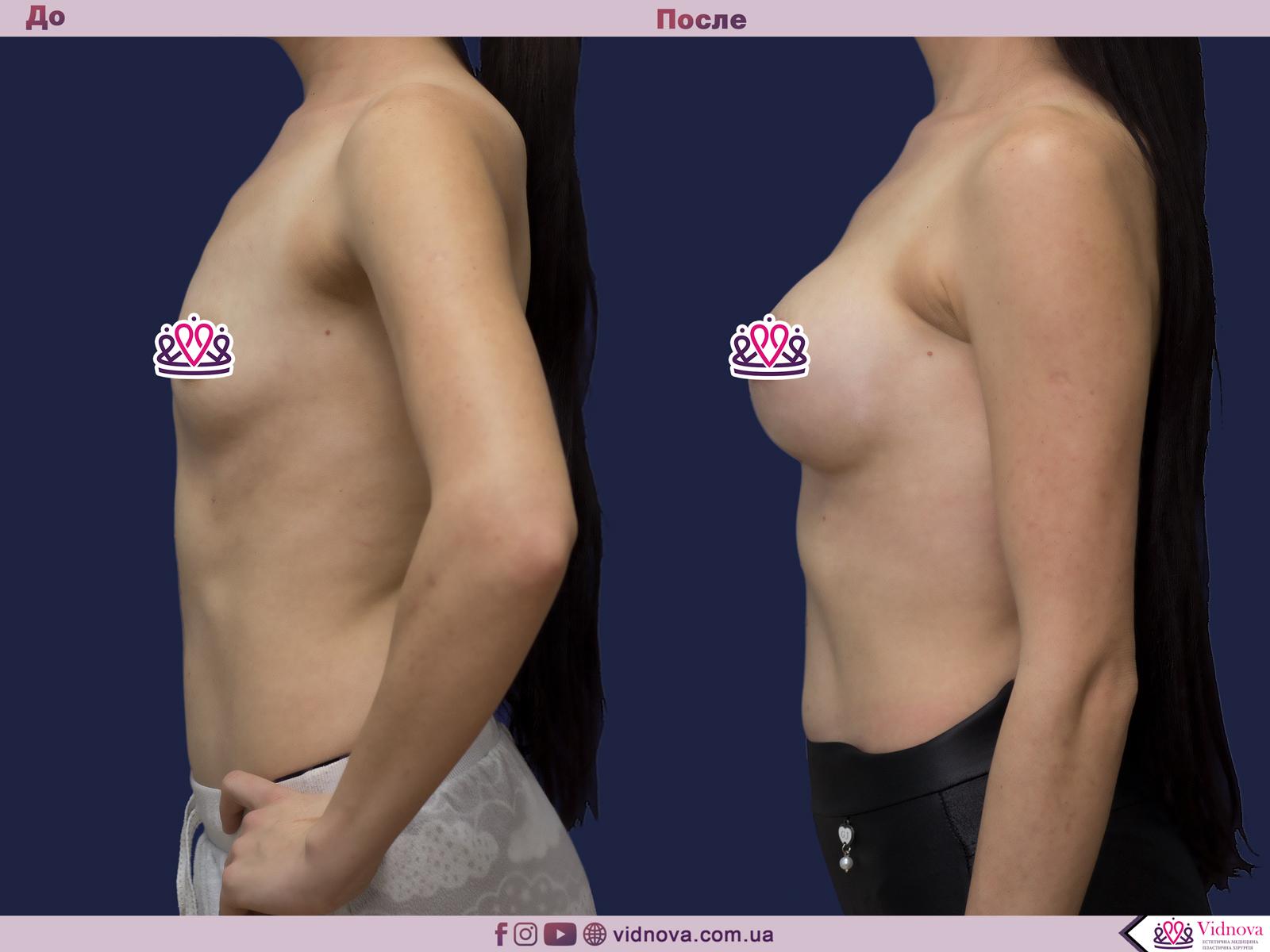 Увеличение груди: Фото ДО и ПОСЛЕ - Пример №73-3 - Клиника Vidnova
