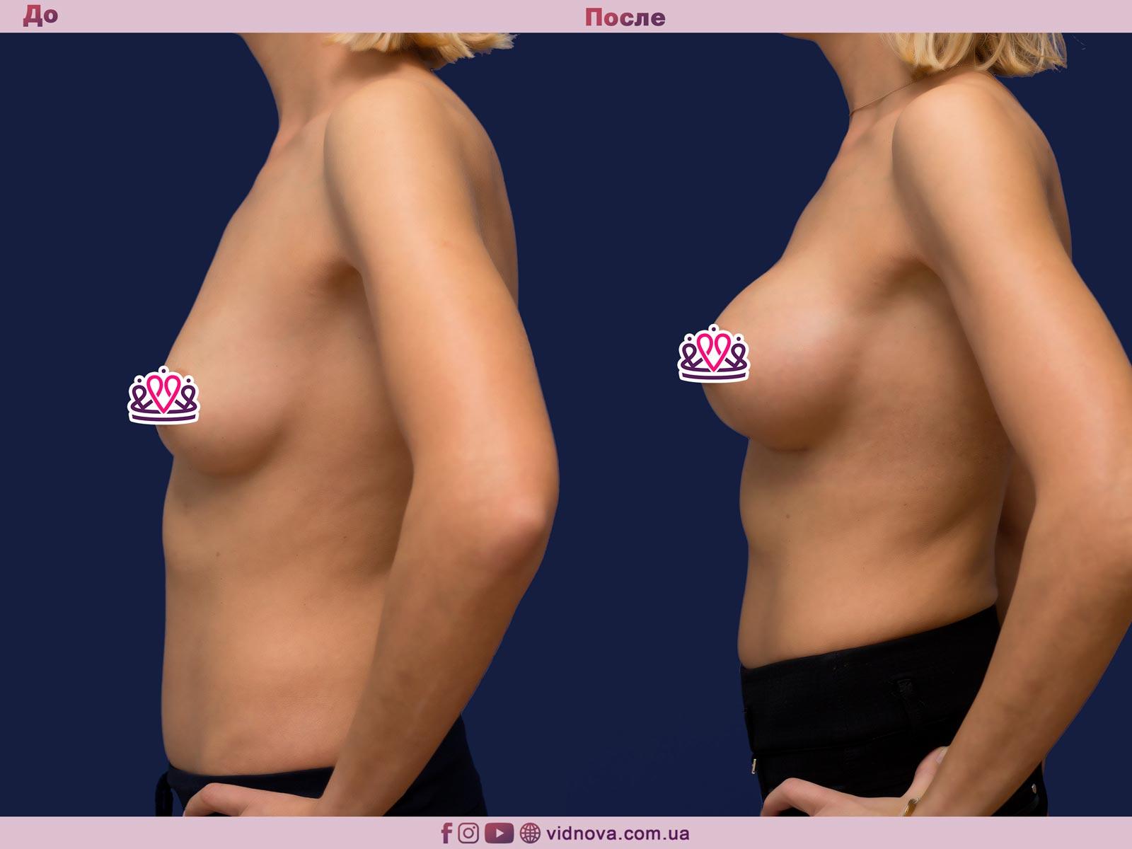 Увеличение груди: Фото ДО и ПОСЛЕ - Пример №81-3 - Клиника Vidnova