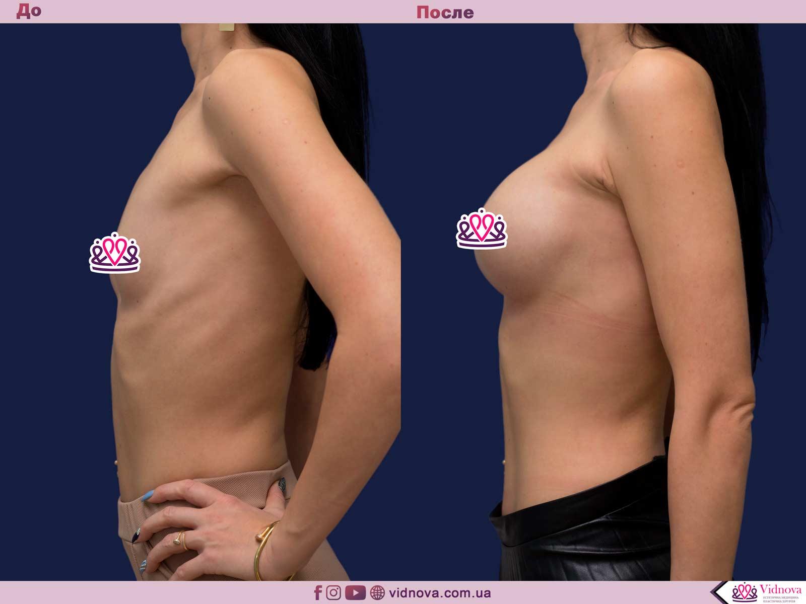Увеличение груди: Фото ДО и ПОСЛЕ - Пример №80-3 - Клиника Vidnova