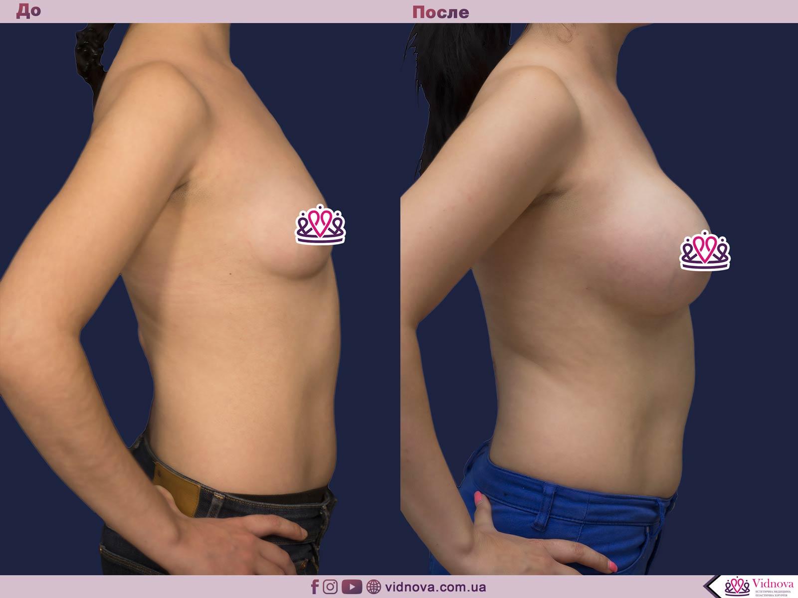 Увеличение груди: Фото ДО и ПОСЛЕ - Пример №72-3 - Клиника Vidnova