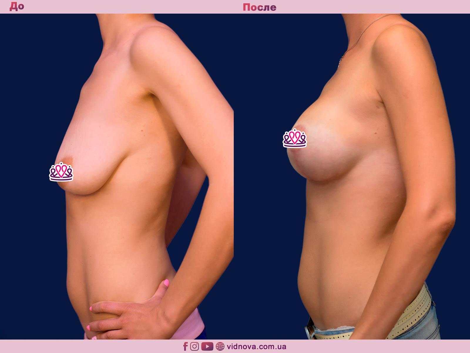 Подтяжка груди: Фото ДО и ПОСЛЕ - Пример №25-3 - Клиника Vidnova