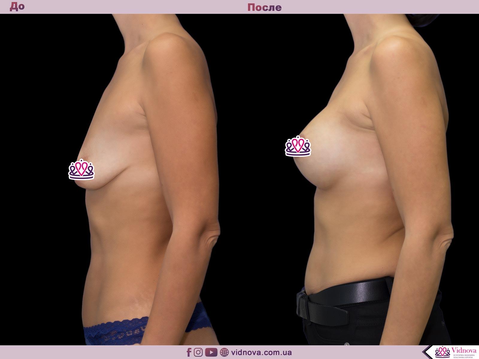 Подтяжка груди: Фото ДО и ПОСЛЕ - Пример №19-3 - Клиника Vidnova
