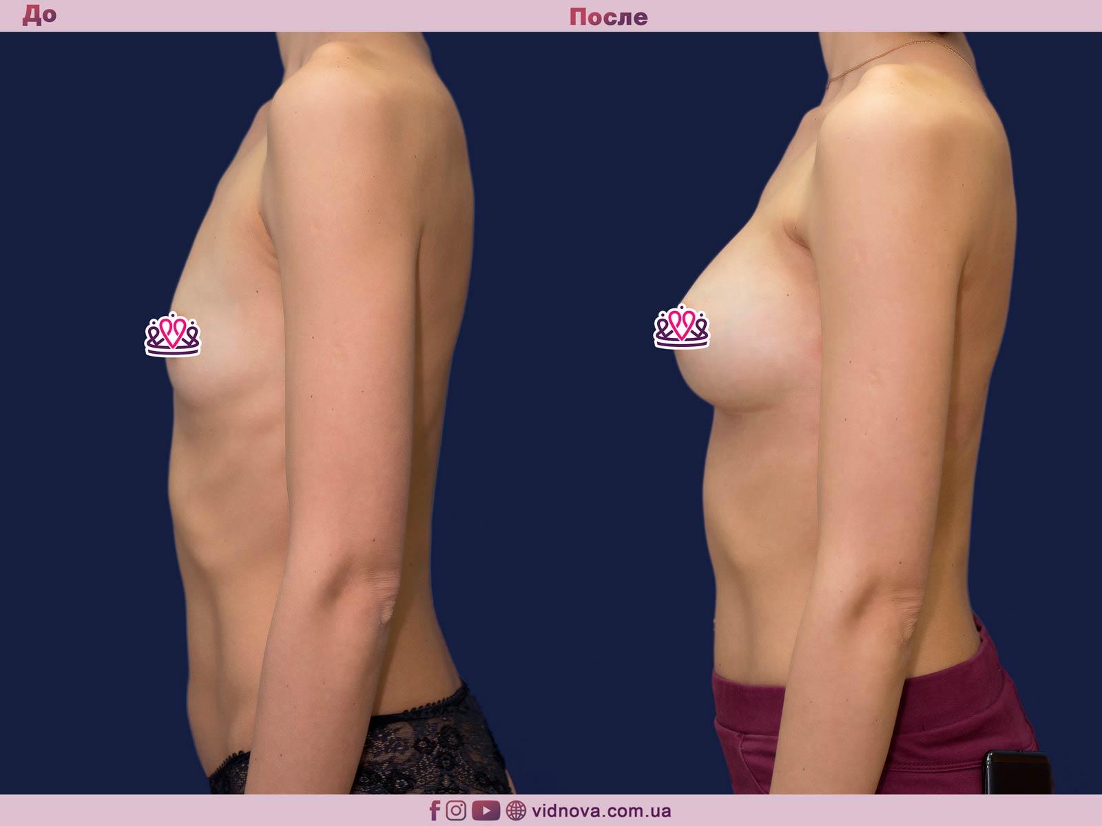 Увеличение груди: Фото ДО и ПОСЛЕ - Пример №76-3 - Клиника Vidnova