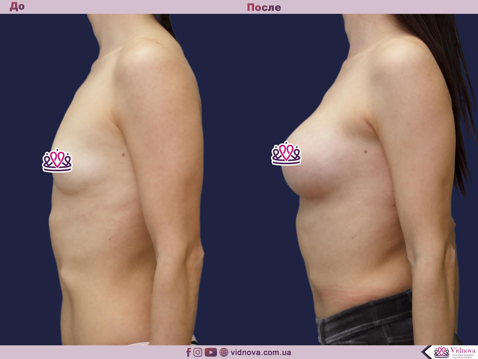 Увеличение груди: Фото ДО и ПОСЛЕ - Пример №75-3 - Клиника Vidnova