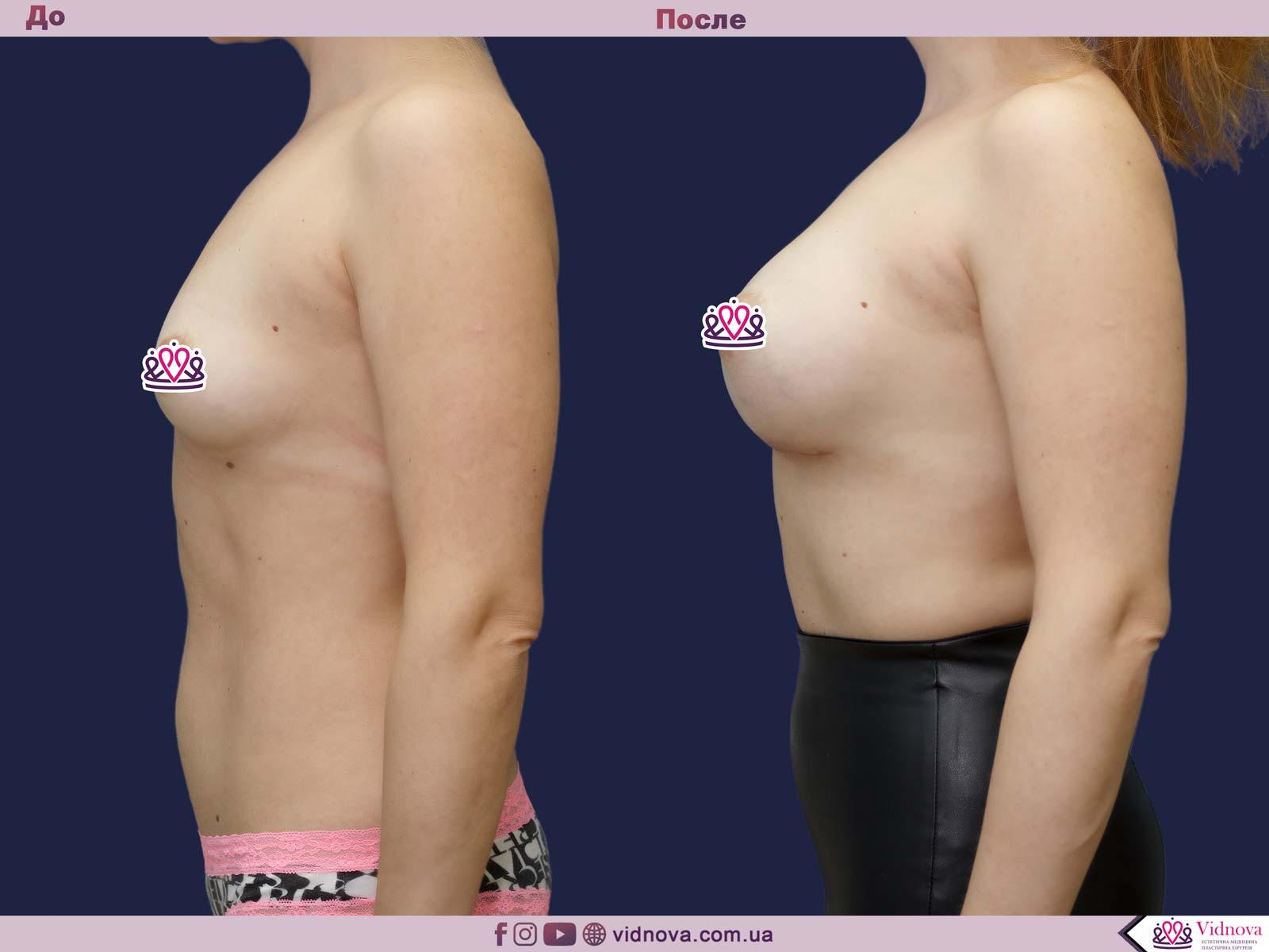 Увеличение груди: Фото ДО и ПОСЛЕ - Пример №71-3 - Клиника Vidnova
