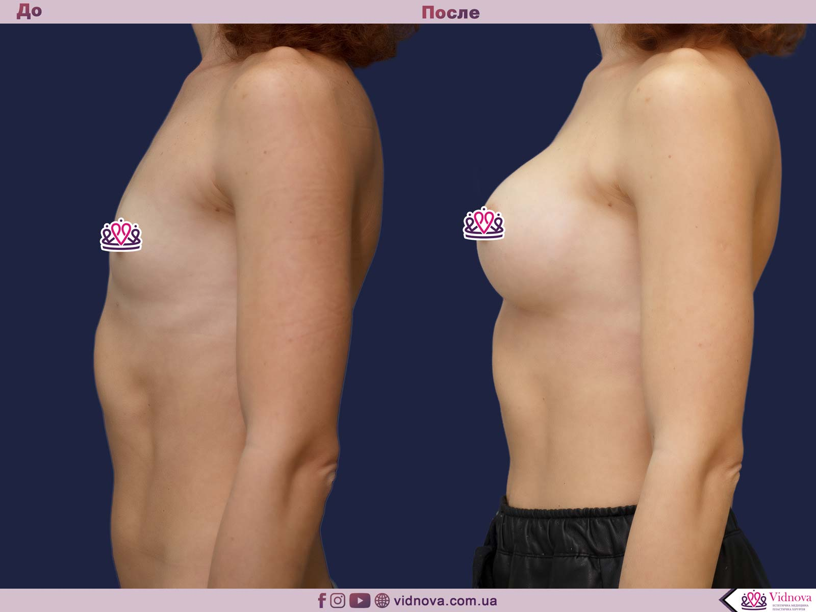 Увеличение груди: Фото ДО и ПОСЛЕ - Пример №70-3 - Клиника Vidnova
