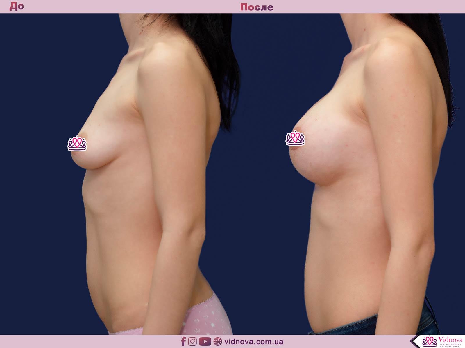 Подтяжка груди: Фото ДО и ПОСЛЕ - Пример №23-3 - Клиника Vidnova