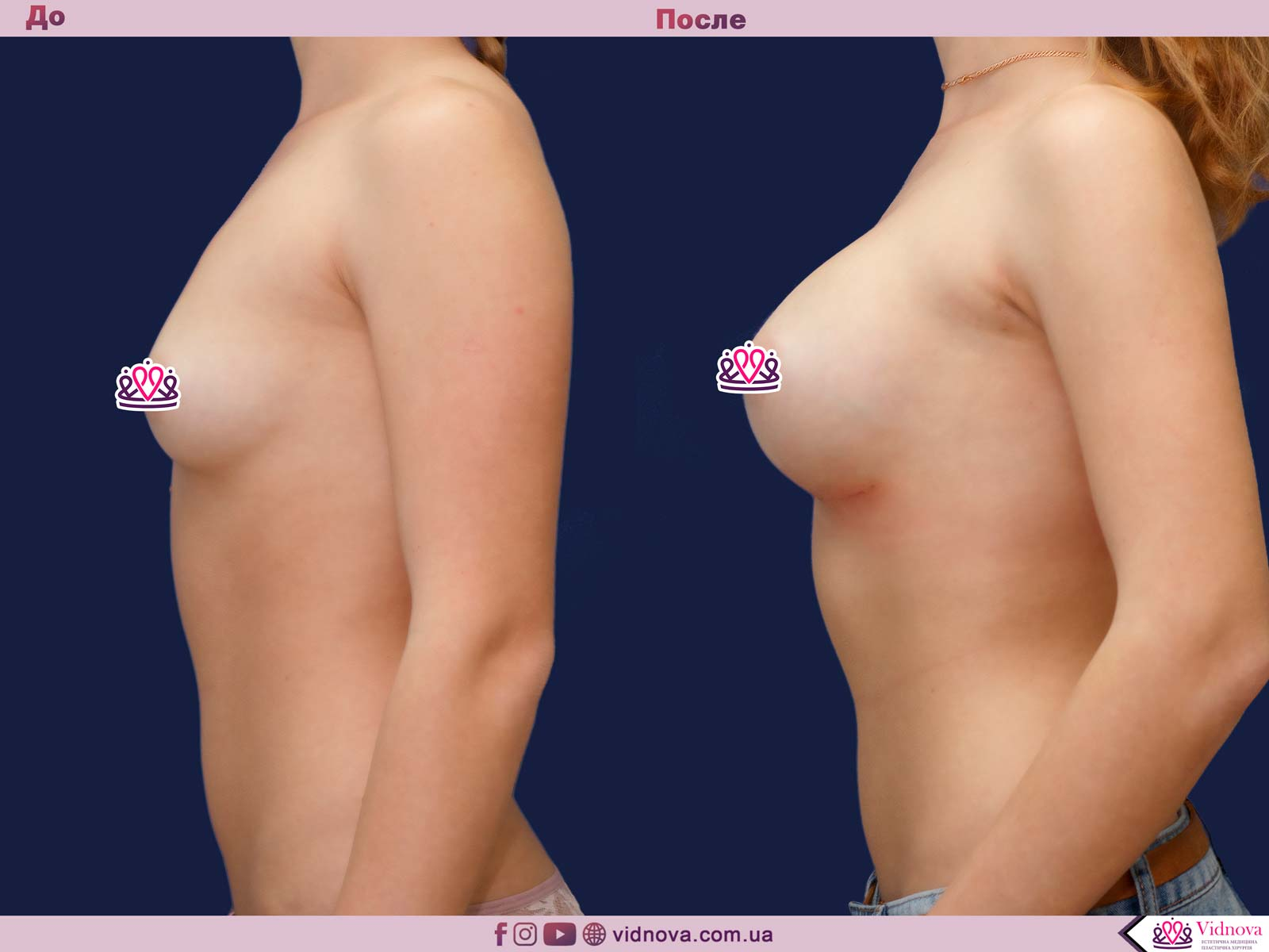 Увеличение груди: Фото ДО и ПОСЛЕ - Пример №66-3 - Клиника Vidnova