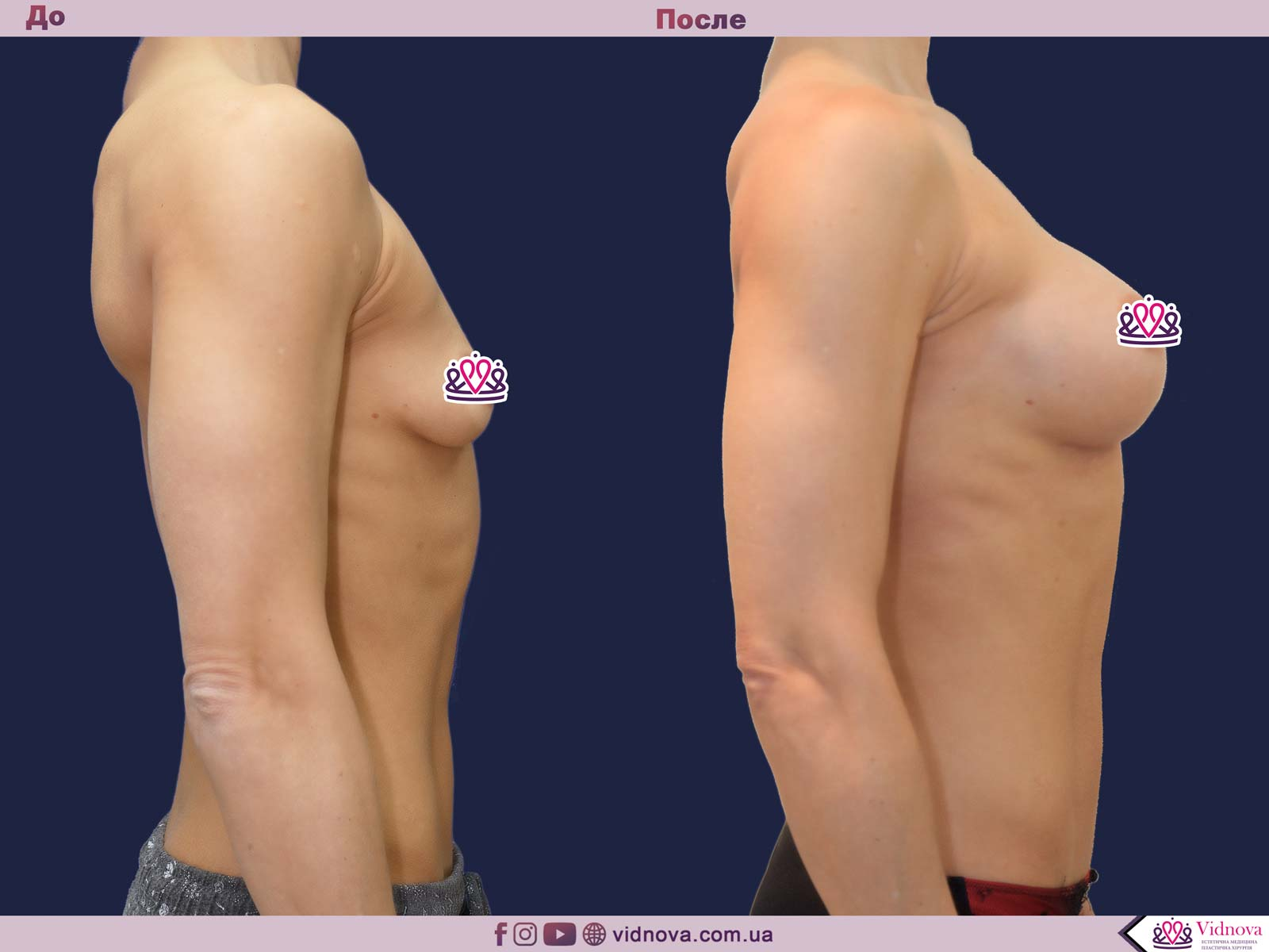 Увеличение груди: Фото ДО и ПОСЛЕ - Пример №67-3 - Клиника Vidnova
