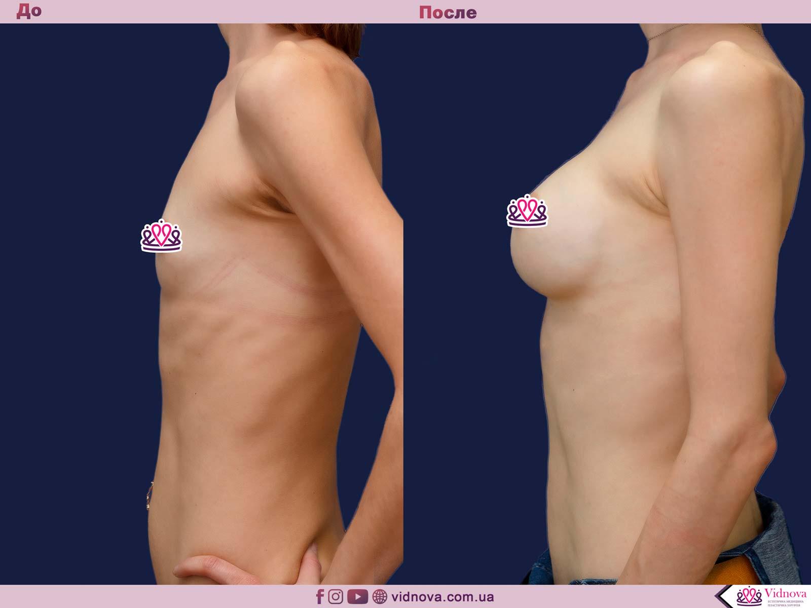 Увеличение груди: Фото ДО и ПОСЛЕ - Пример №65-3 - Клиника Vidnova