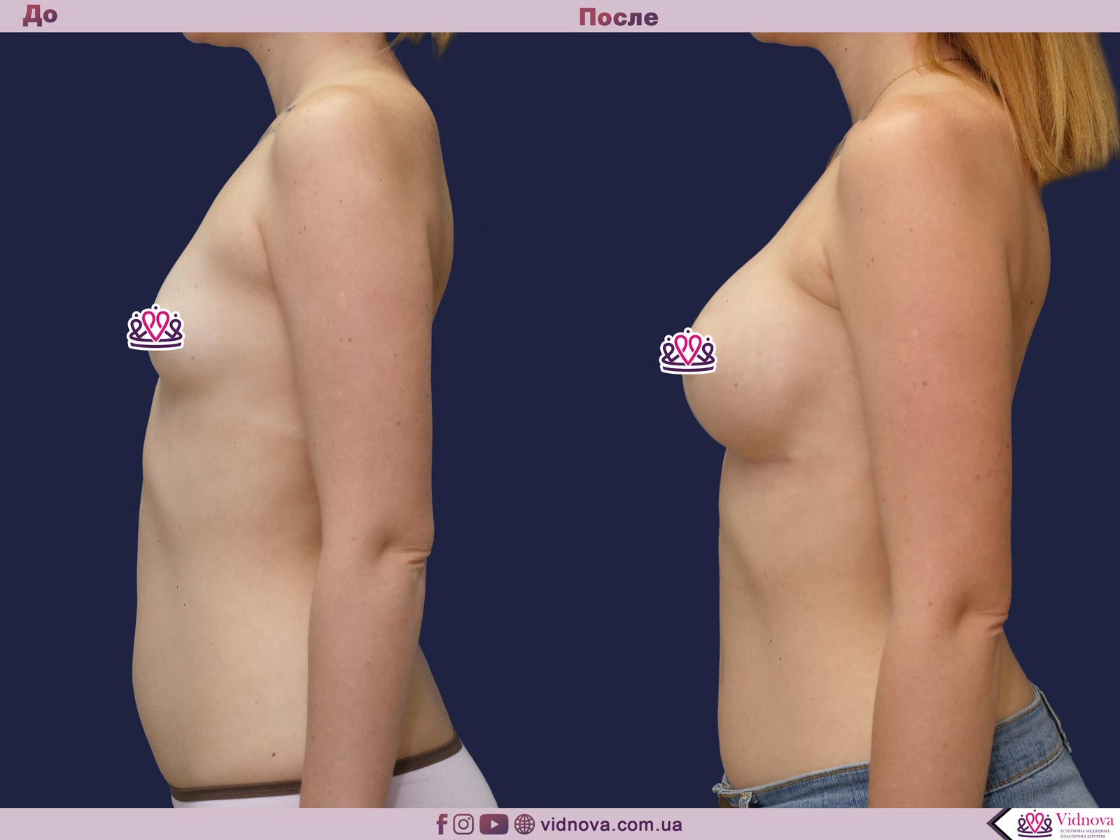 Увеличение груди: Фото ДО и ПОСЛЕ - Пример №61-3 - Клиника Vidnova