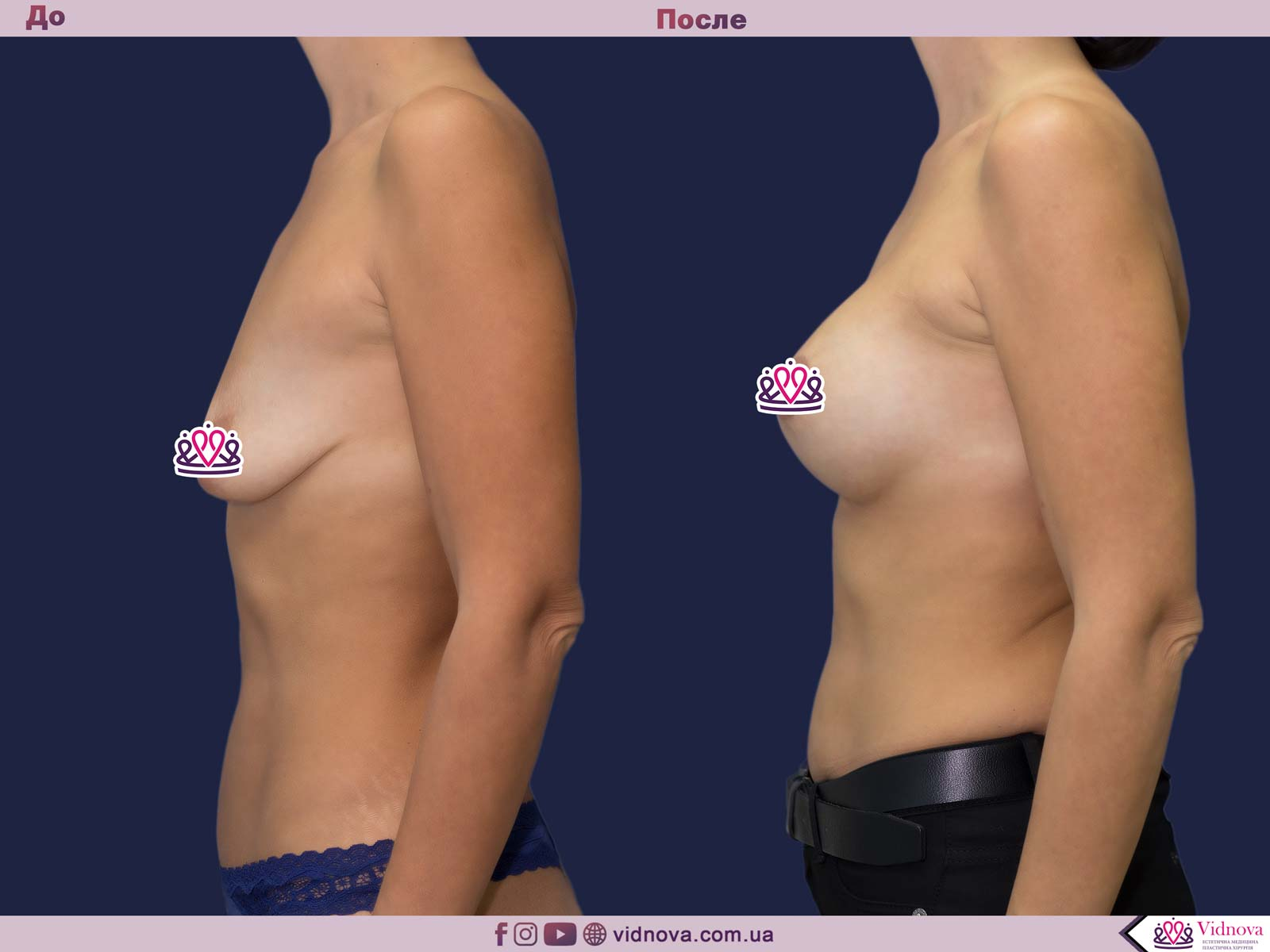 Увеличение груди: Фото ДО и ПОСЛЕ - Пример №68-3 - Клиника Vidnova