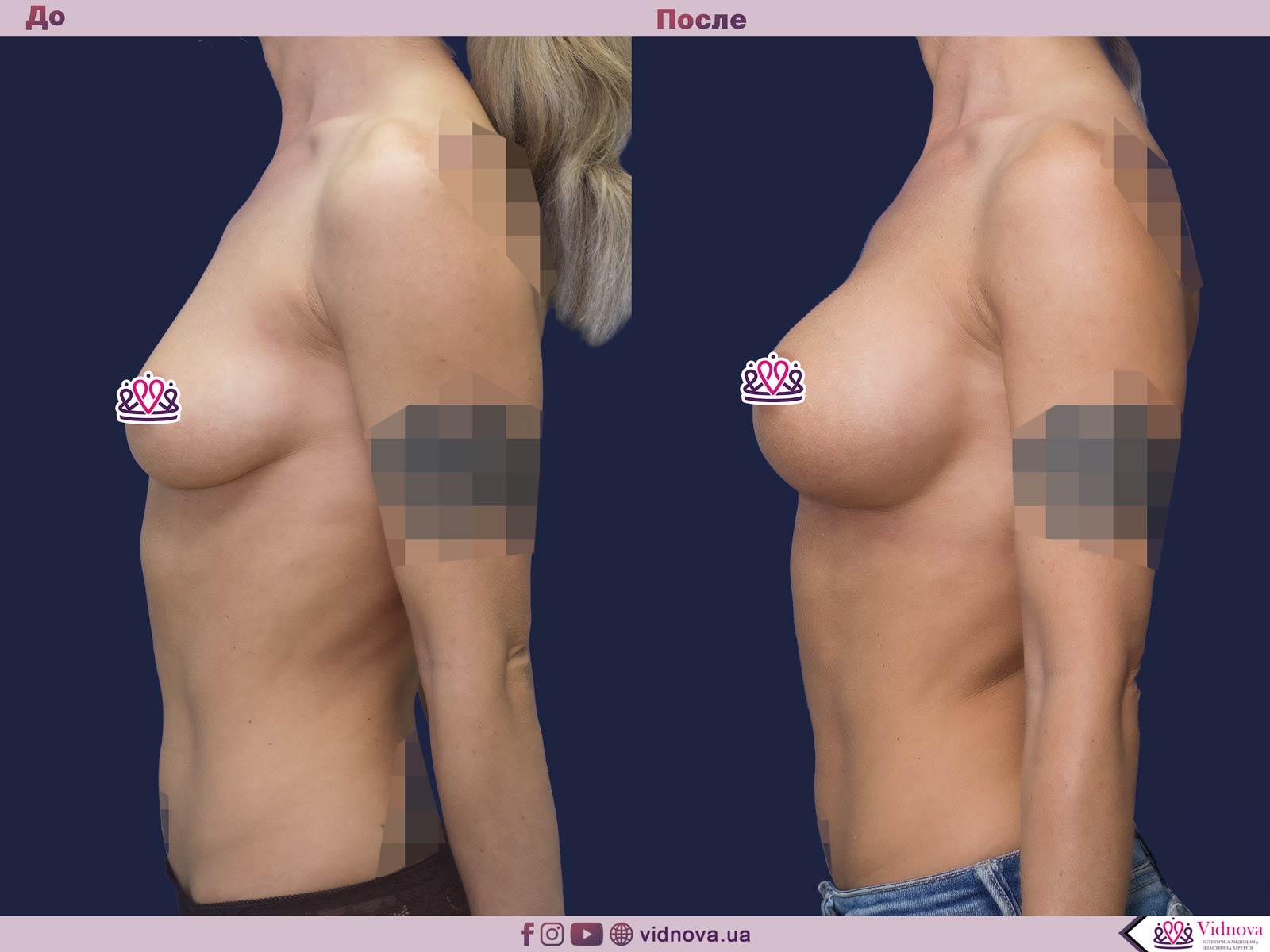 Увеличение груди: Фото ДО и ПОСЛЕ - Пример №51-3 - Клиника Vidnova