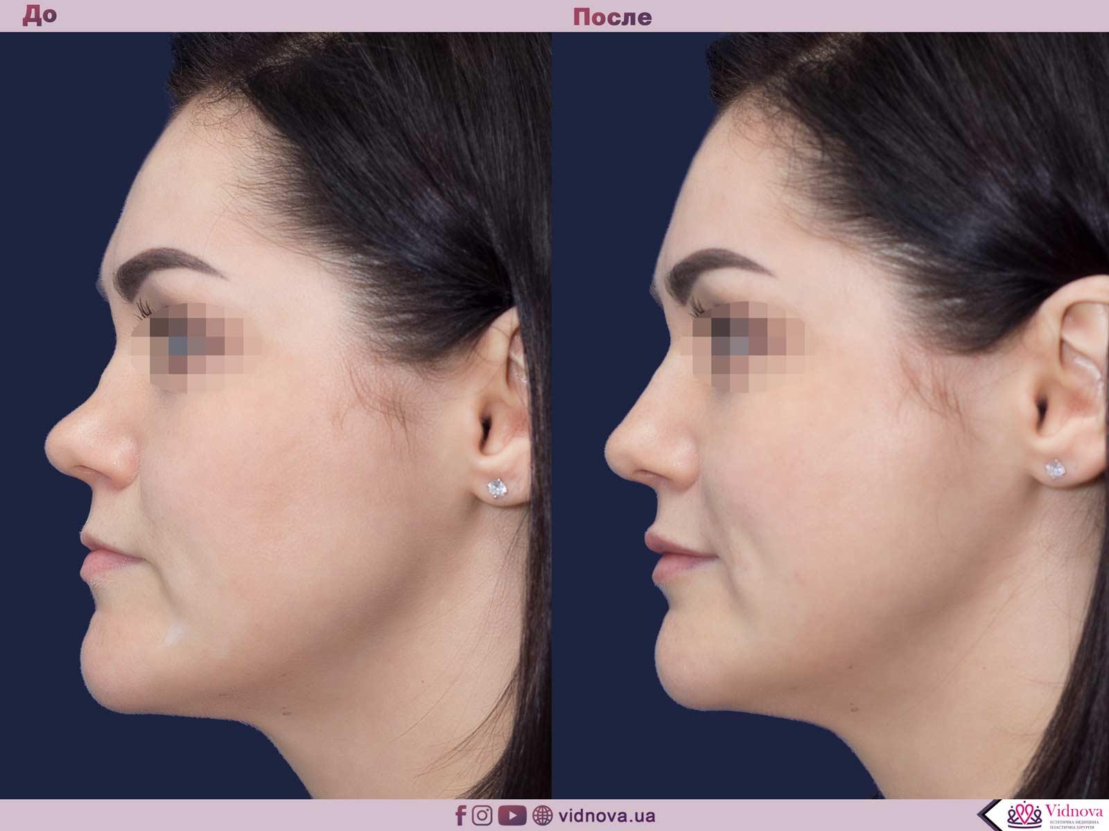 Ринопластика: Фото ДО и ПОСЛЕ - Пример №6-3 - Клиника Vidnova