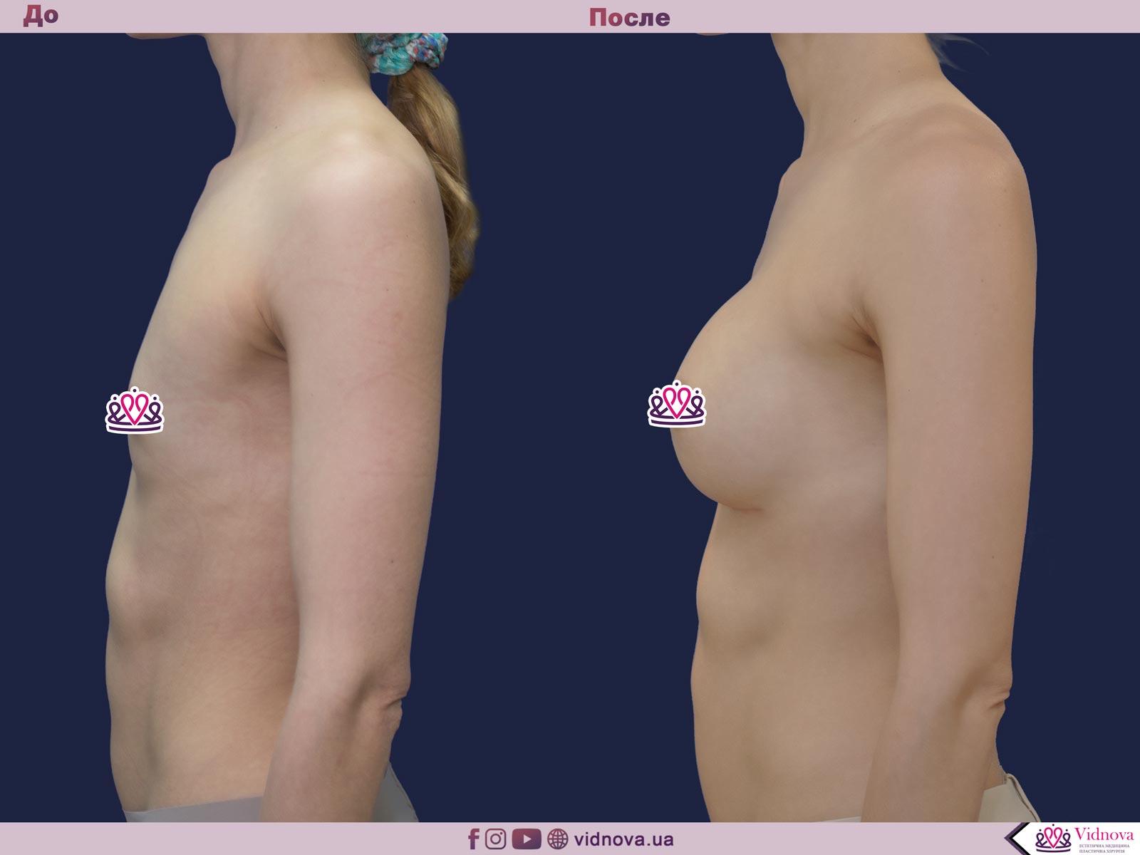 Увеличение груди: Фото ДО и ПОСЛЕ - Пример №58-3 - Клиника Vidnova