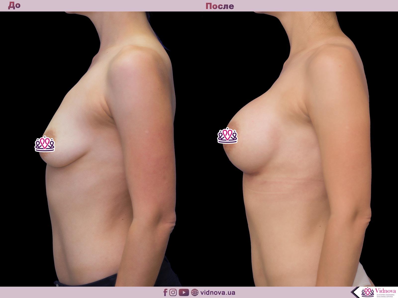 Увеличение груди: Фото ДО и ПОСЛЕ - Пример №53-3 - Клиника Vidnova