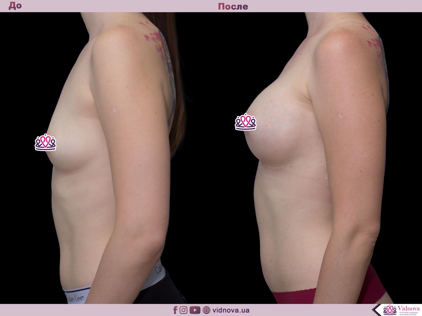 Увеличение груди: Фото ДО и ПОСЛЕ - Пример №45-3 - Клиника Vidnova
