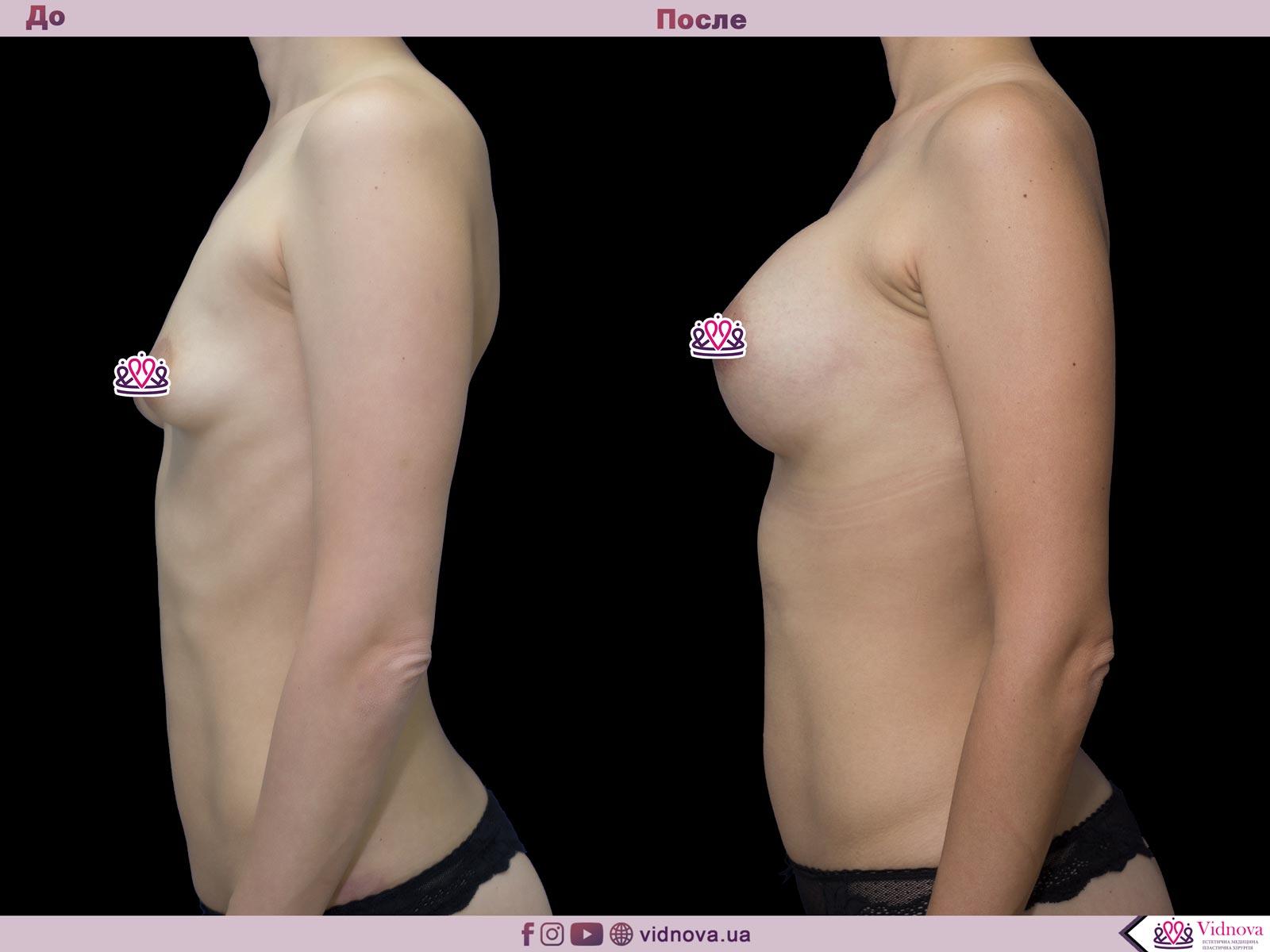 Увеличение груди: Фото ДО и ПОСЛЕ - Пример №52-3 - Клиника Vidnova