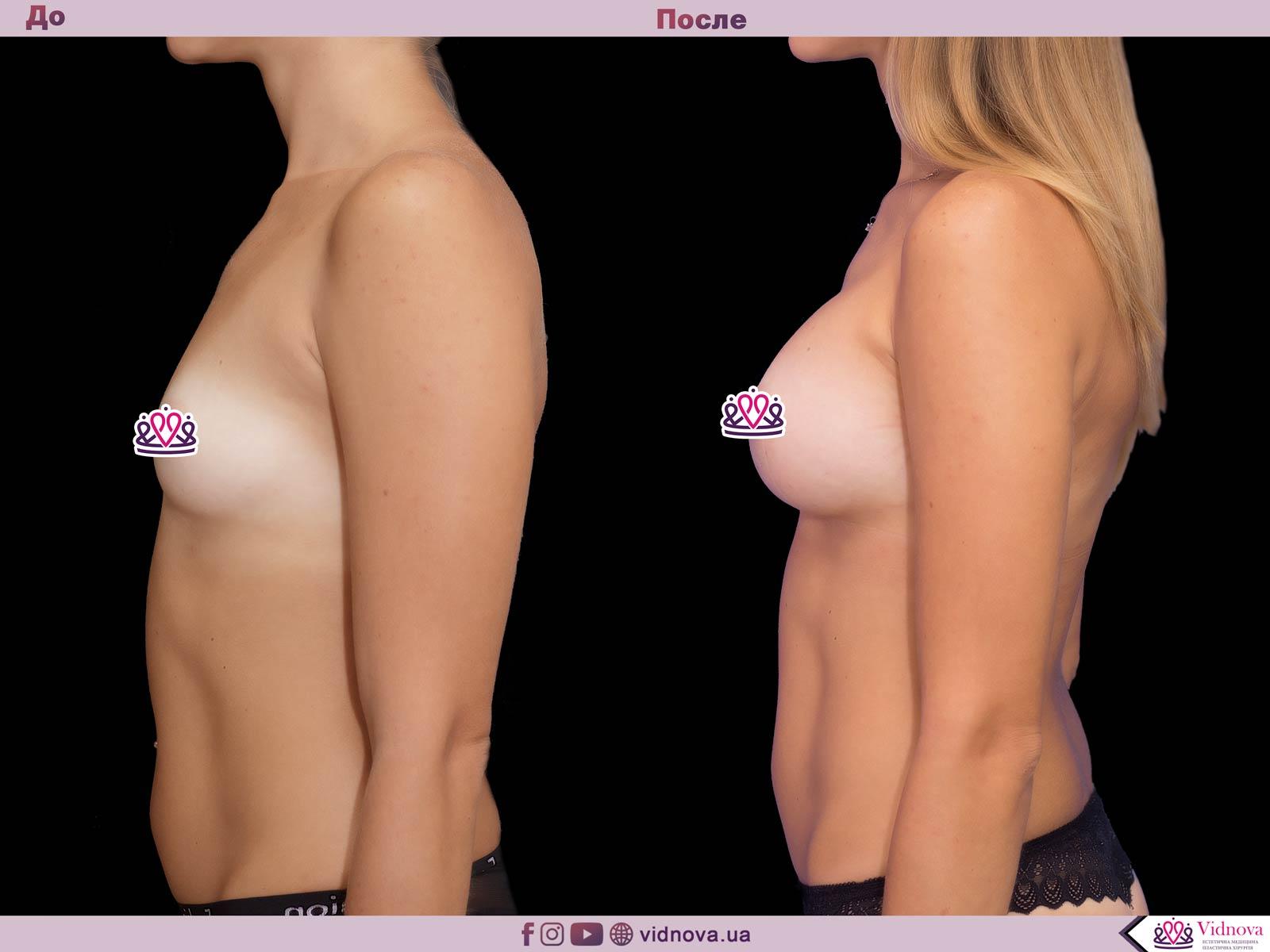 Увеличение груди: Фото ДО и ПОСЛЕ - Пример №50-3 - Клиника Vidnova