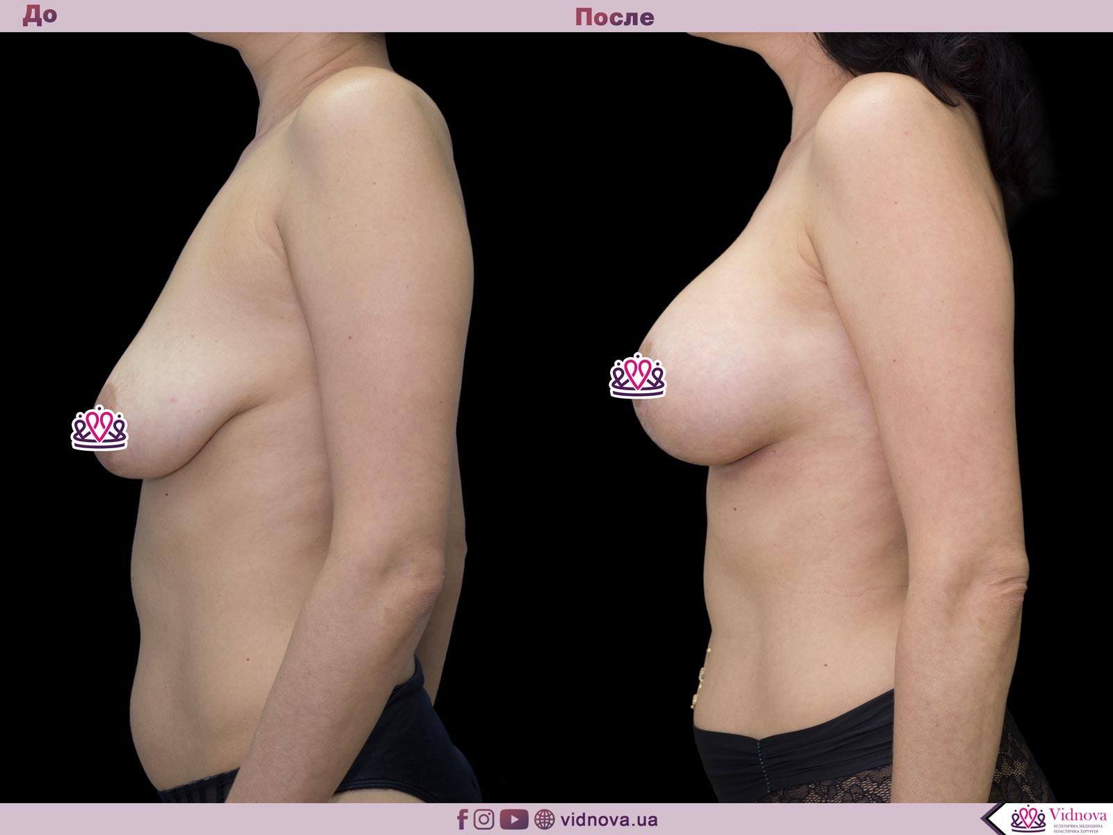 Подтяжка груди: Фото ДО и ПОСЛЕ - Пример №22-3 - Клиника Vidnova