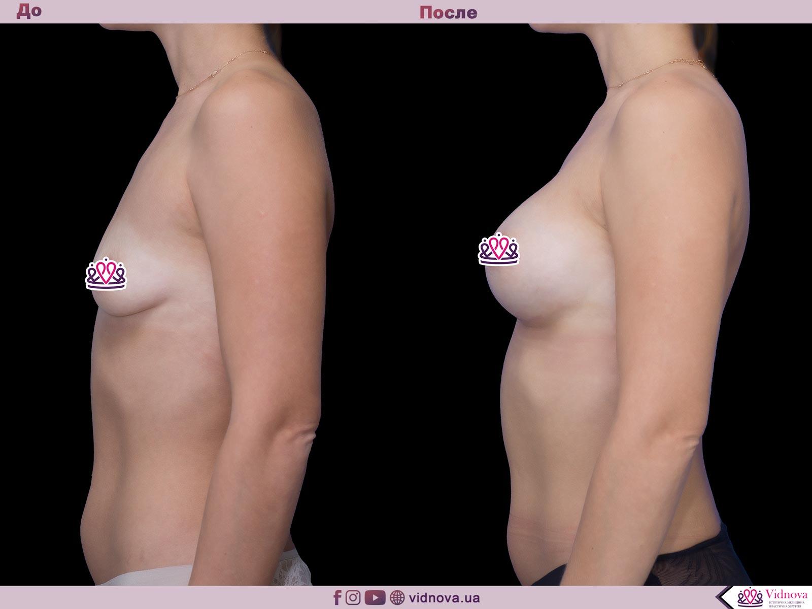 Увеличение груди: Фото ДО и ПОСЛЕ - Пример №49-3 - Клиника Vidnova