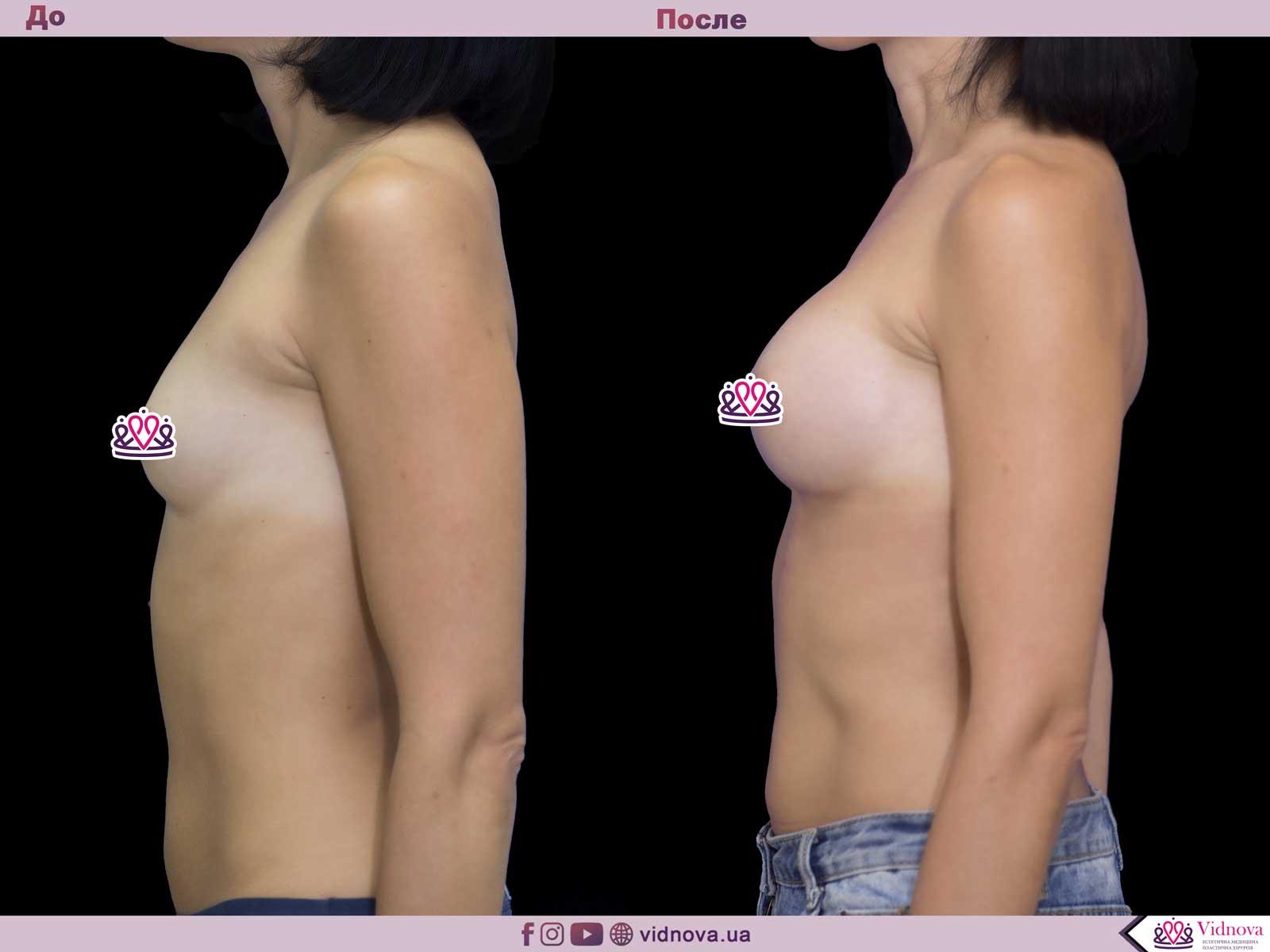 Увеличение груди: Фото ДО и ПОСЛЕ - Пример №48-3 - Клиника Vidnova
