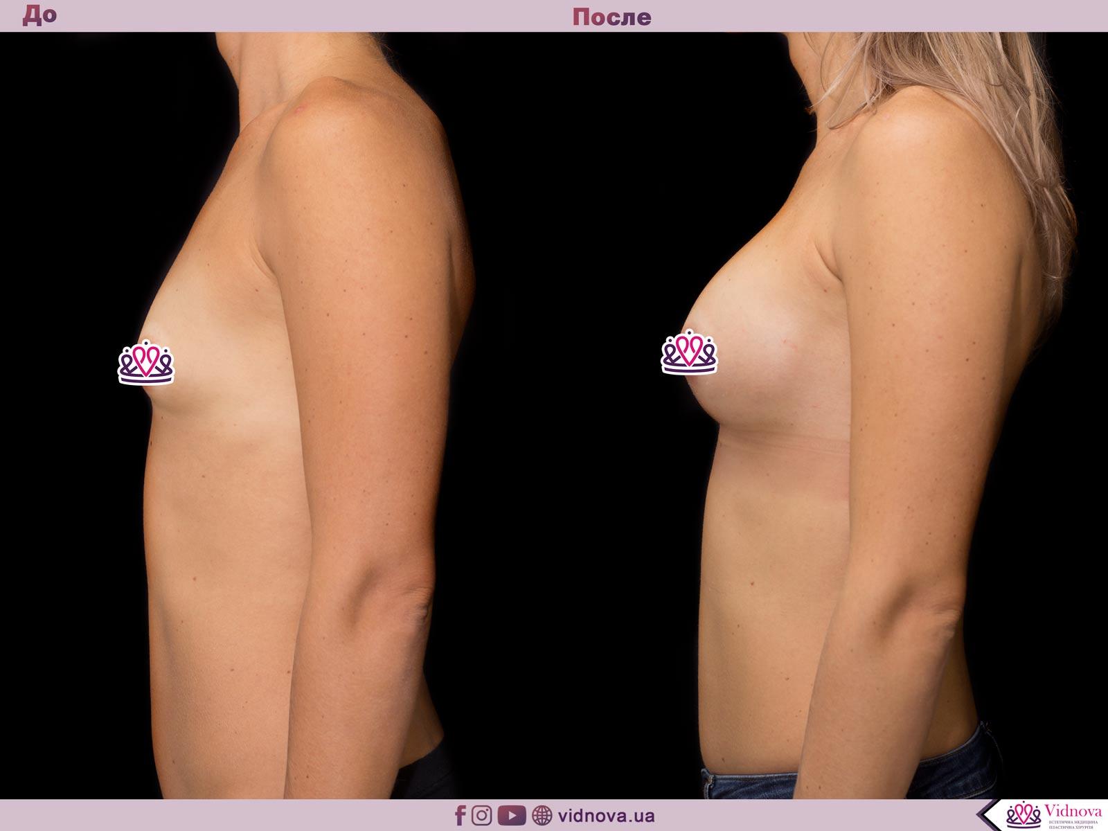 Увеличение груди: Фото ДО и ПОСЛЕ - Пример №46-3 - Клиника Vidnova