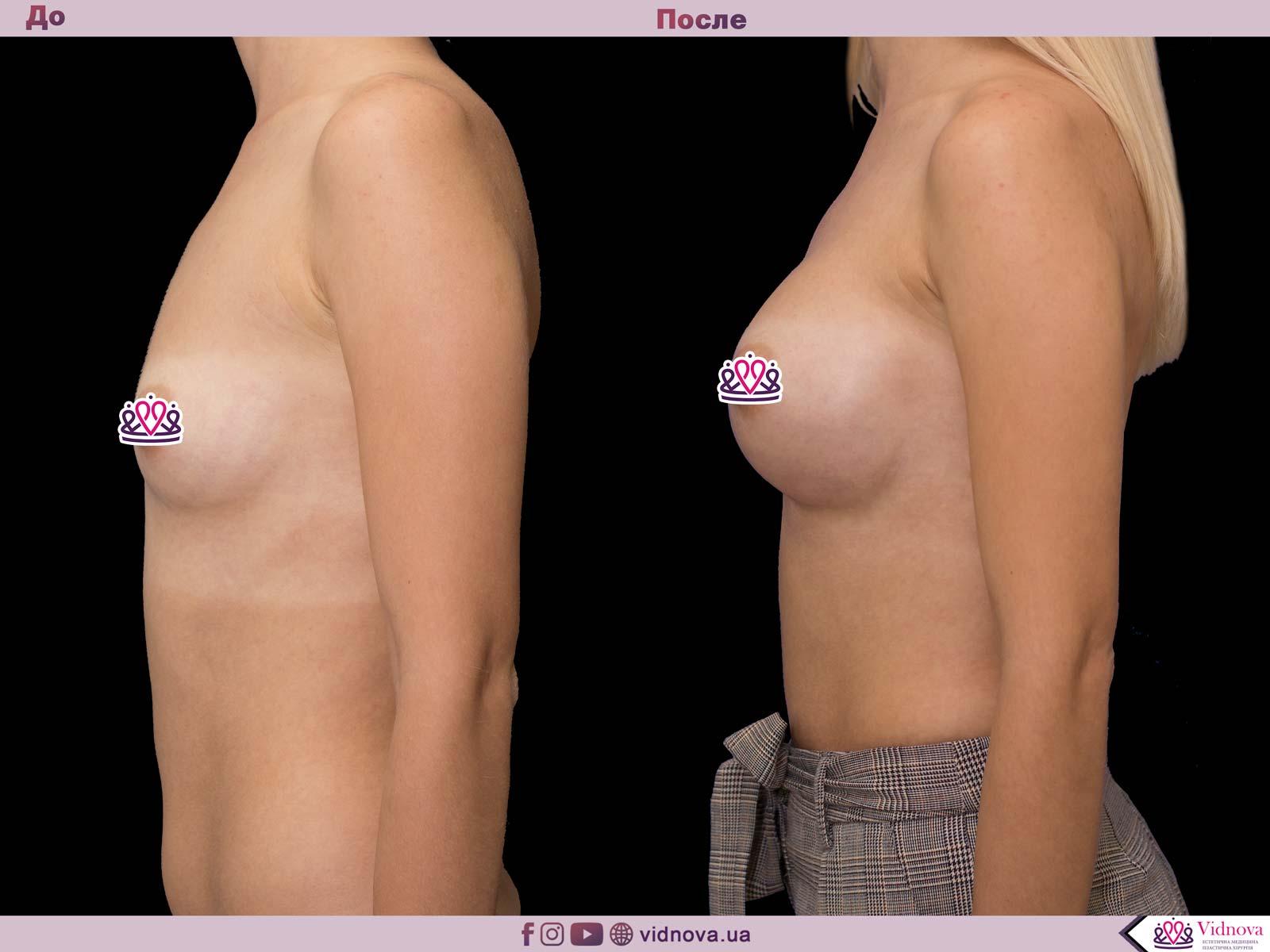 Увеличение груди: Фото ДО и ПОСЛЕ - Пример №47-3 - Клиника Vidnova