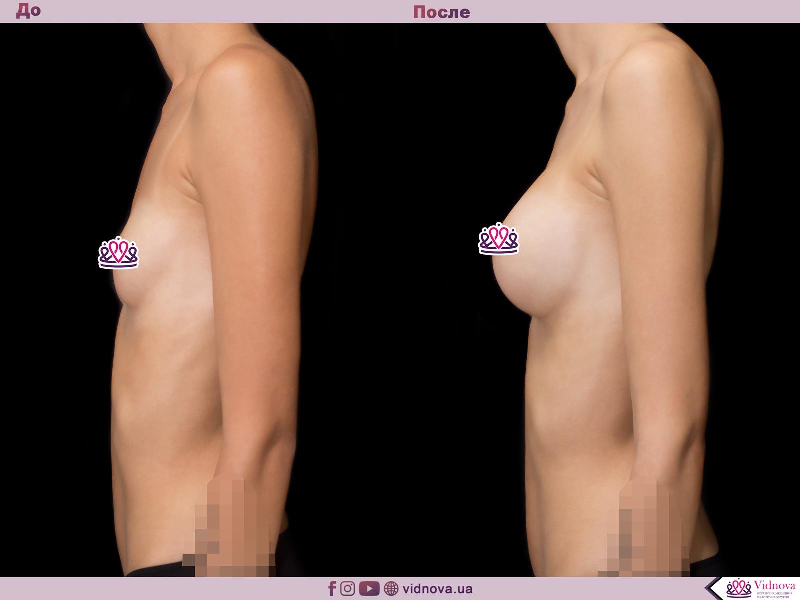 Увеличение груди: Фото ДО и ПОСЛЕ - Пример №44-3 - Клиника Vidnova