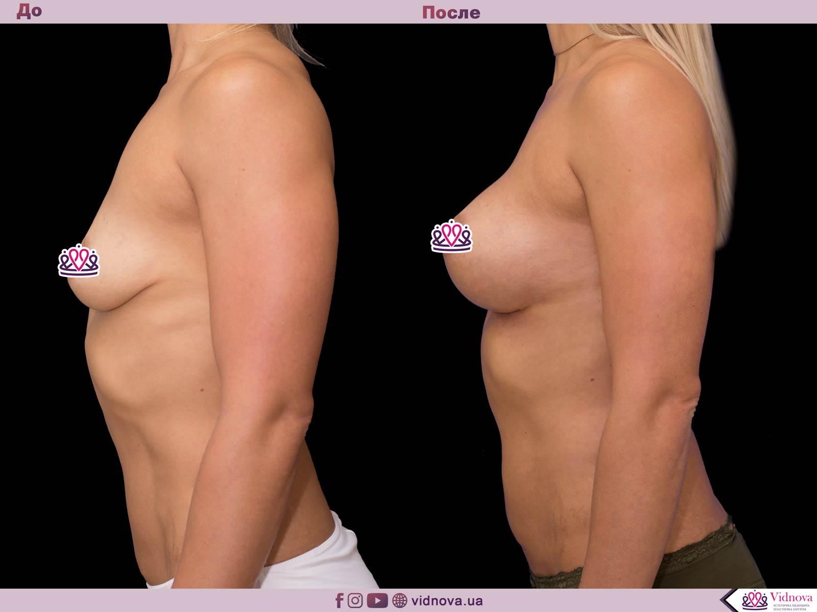 Увеличение груди: Фото ДО и ПОСЛЕ - Пример №35-3 - Клиника Vidnova