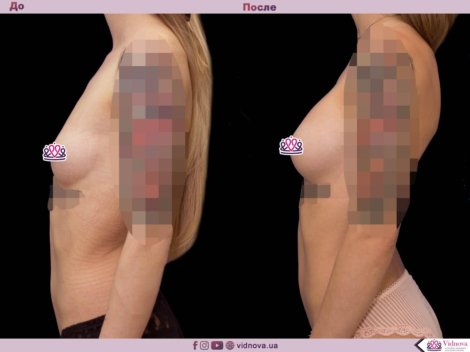 Увеличение груди: Фото ДО и ПОСЛЕ - Пример №43-3 - Клиника Vidnova