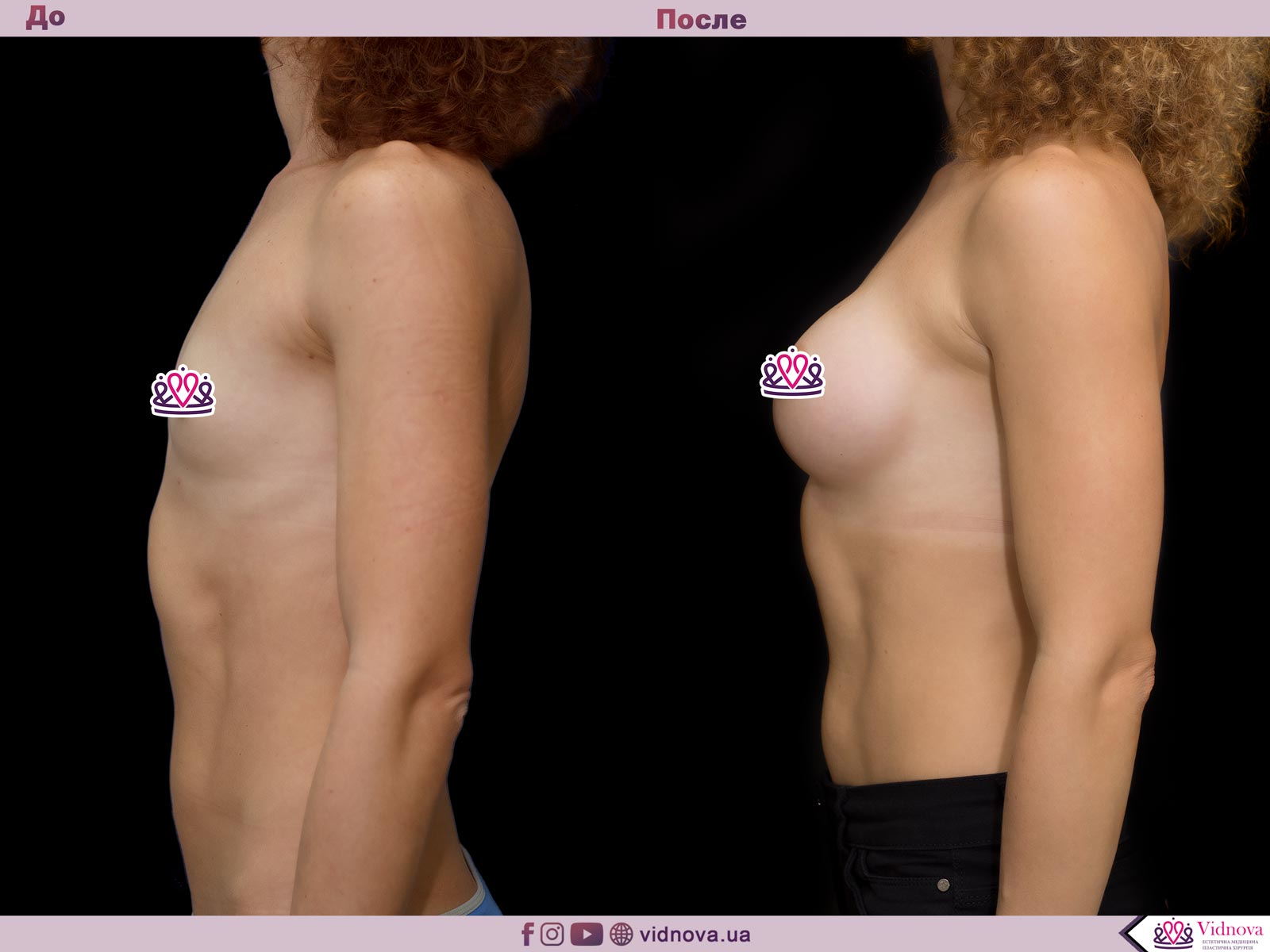 Увеличение груди: Фото ДО и ПОСЛЕ - Пример №42-3 - Клиника Vidnova