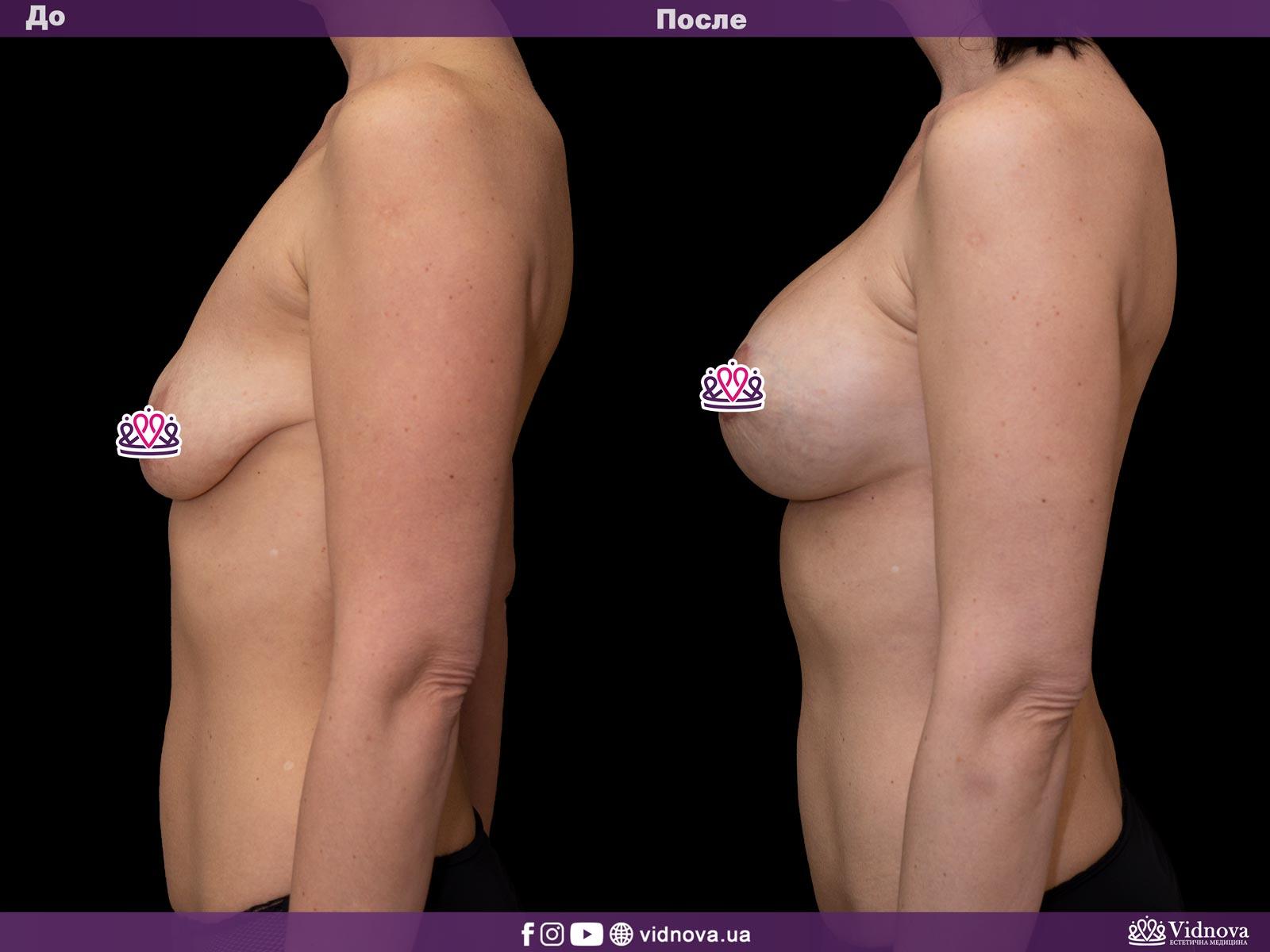 Подтяжка груди: Фото ДО и ПОСЛЕ - Пример №13-3 - Клиника Vidnova