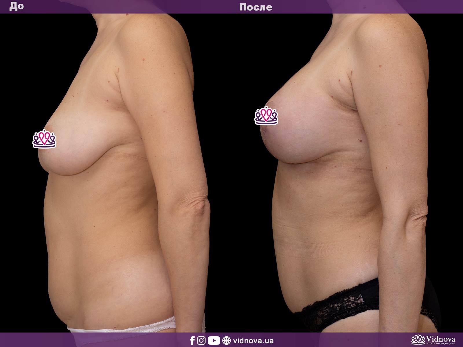 Подтяжка груди: Фото ДО и ПОСЛЕ - Пример №15-3 - Клиника Vidnova
