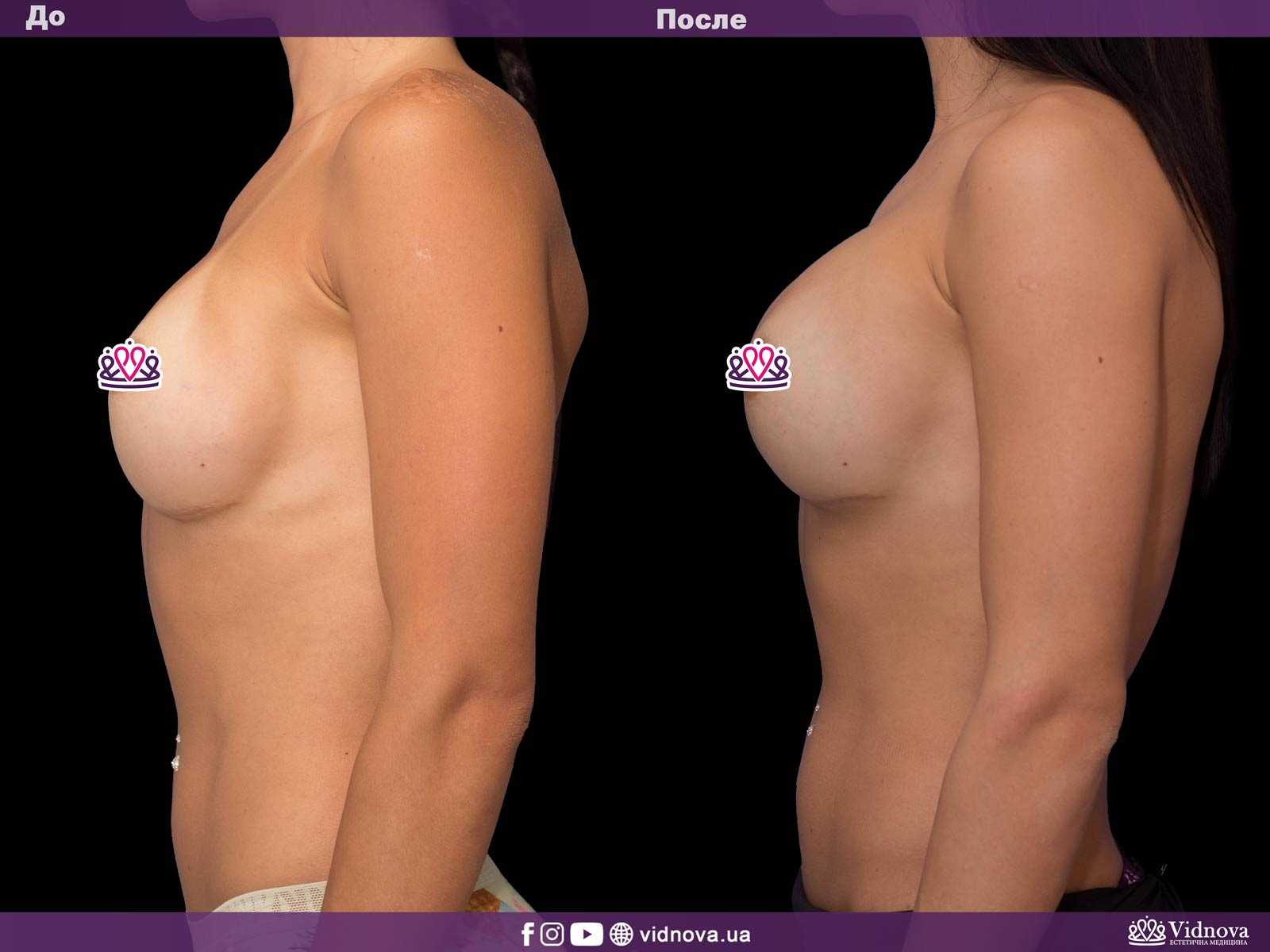 Увеличение груди: Фото ДО и ПОСЛЕ - Пример №33-3 - Клиника Vidnova