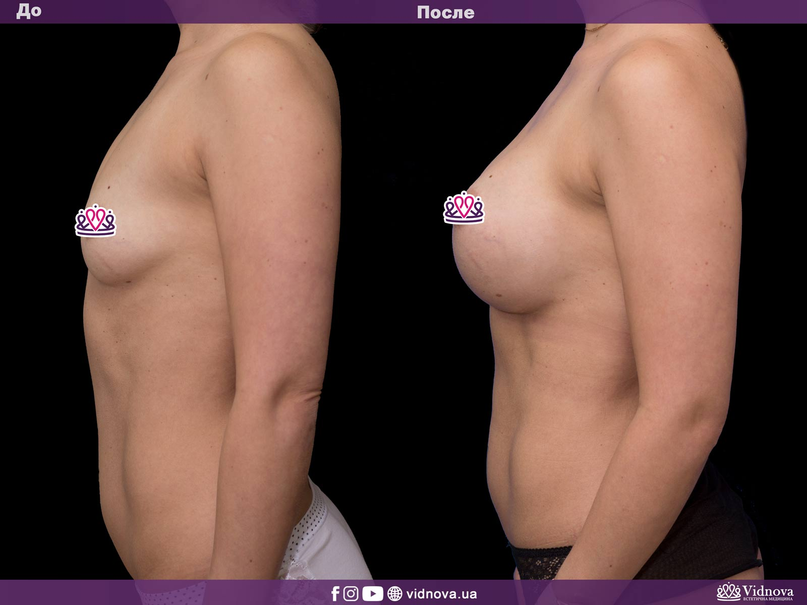 Увеличение груди: Фото ДО и ПОСЛЕ - Пример №39-3 - Клиника Vidnova